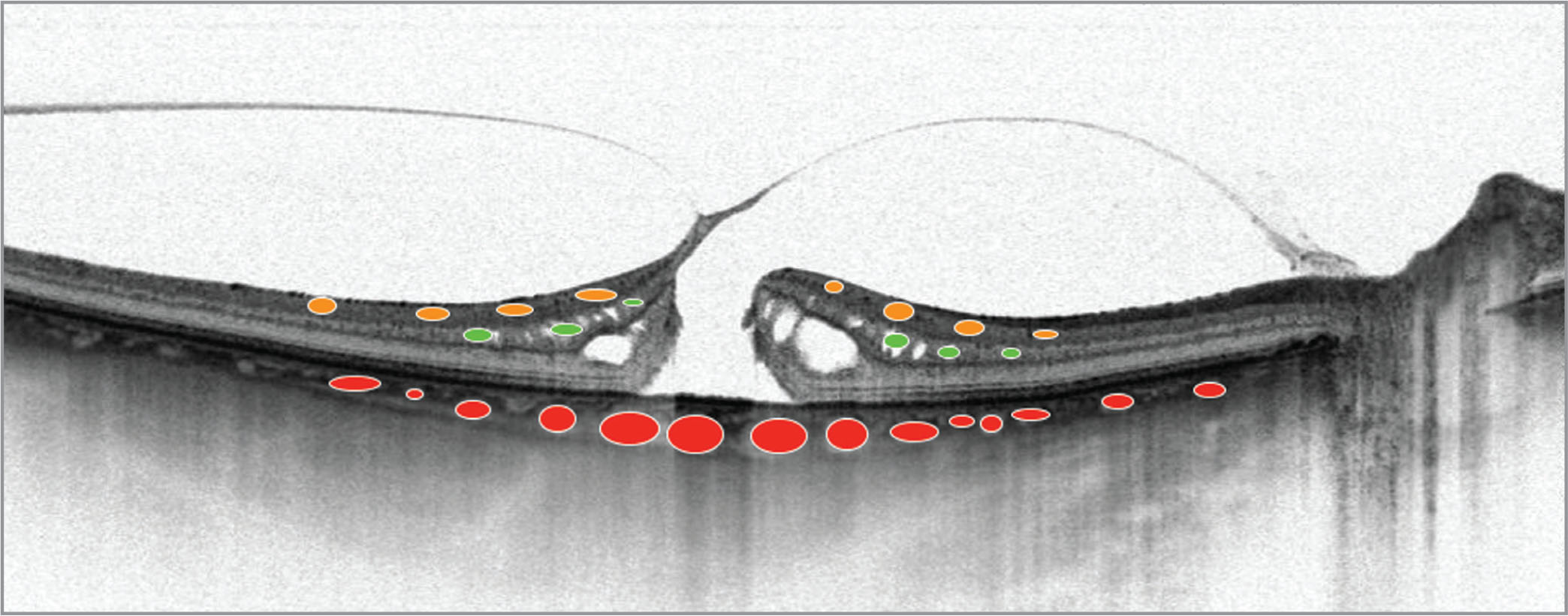 Localization of vessels in particular retina and choroidal layers. Orange circles represent superficial retina vessel plexus. Green circles represent deep retina vessels plexus. Red circles represent choriocapillaries.
