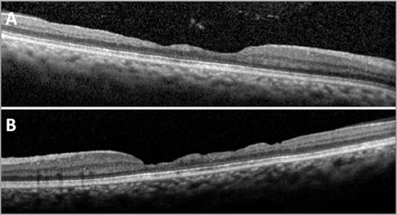 "Spectral-domain optical coherence tomography of (A) the right eye and (B) the left eye. Significant inner retinal thinning is observed in a ""staircase""-like pattern, mostly in the temporal macula. No cysts are seen, and the outer retinal structures appear preserved."