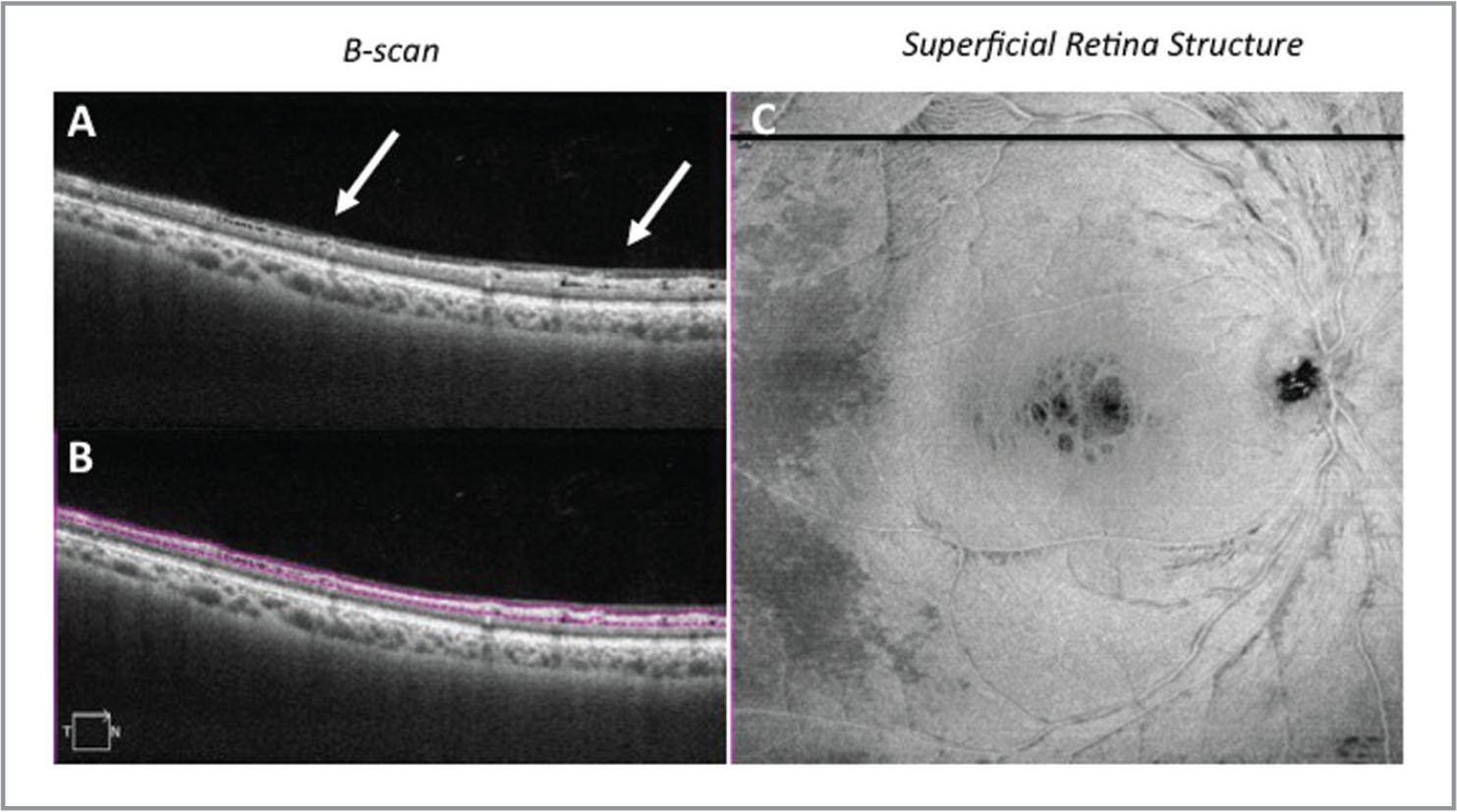 Swept-source optical coherence tomography along the superior arcade in the right eye. (A) Cross-sectional structural B-scan, along with (B) a B-scan with segmentation of the inner retina, demonstrate the inner retinal cysts (arrows). (C) Superficial retinal structure map demonstrates cystic changes within the central macula and along the arcades with abnormal thinning temporally. The black line represents the axis of the cross-sectional B-scan.