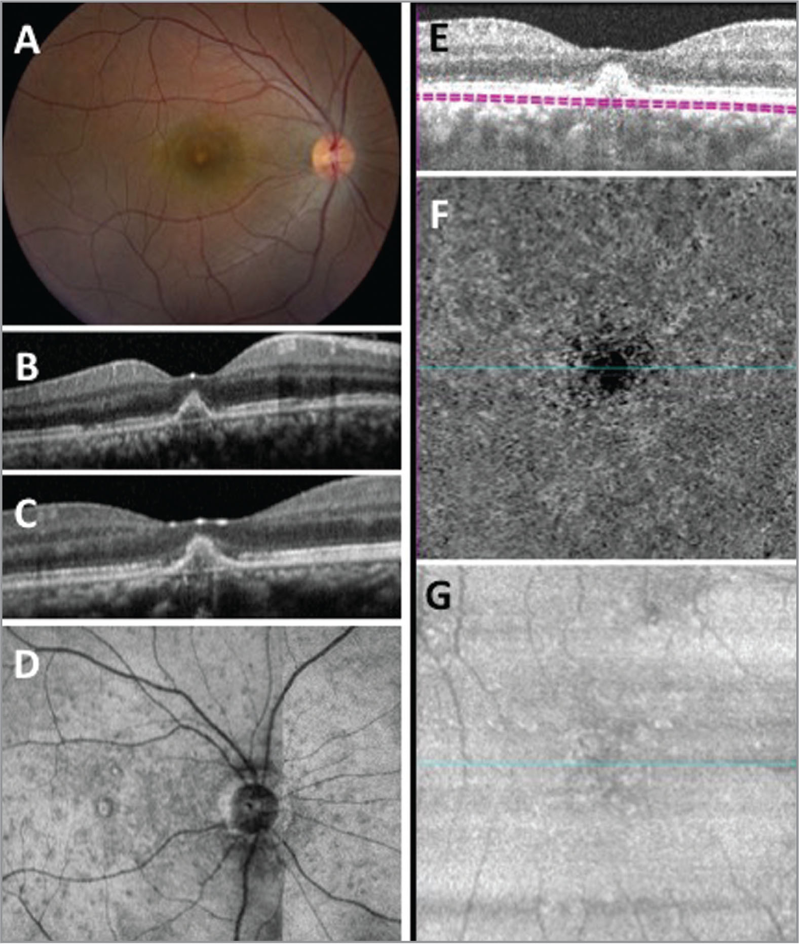 Imaging from 2 and 3 weeks after presentation. (A) Color fundus images from 2 weeks after presentation showing a change in the configuration of the pigment epithelial detachment (PED). (B) Spectral-domain optical coherence tomography (SD-OCT) imaging showing some recovery of the outer retinal ellipsoid zone with a change in the configuration of the lesion. (C) Three weeks after initial presentation, SD-OCT imaging showing recovery of outer retina with a persistent deposit. (D) En face outer retinal slab of the ellipsoid zone measure 20 μm to 40 μm above the retinal pigment epithelial layer showing improvement of the ellipsoid zone when compared with Figure 1D. (E) Cross-sectional B-scan from the swept-source OCT angiography scans with the boundary segmentation for the slab encompassing the choriocapillaris shown in (F) and (G). (F) En face flow image corresponding to the choriocapillaris layer demonstrating persistent loss of choriocapillaris flow beneath the deposit. (G) En face structural image corresponding to the choriocapillaris layer showing an intact signal.