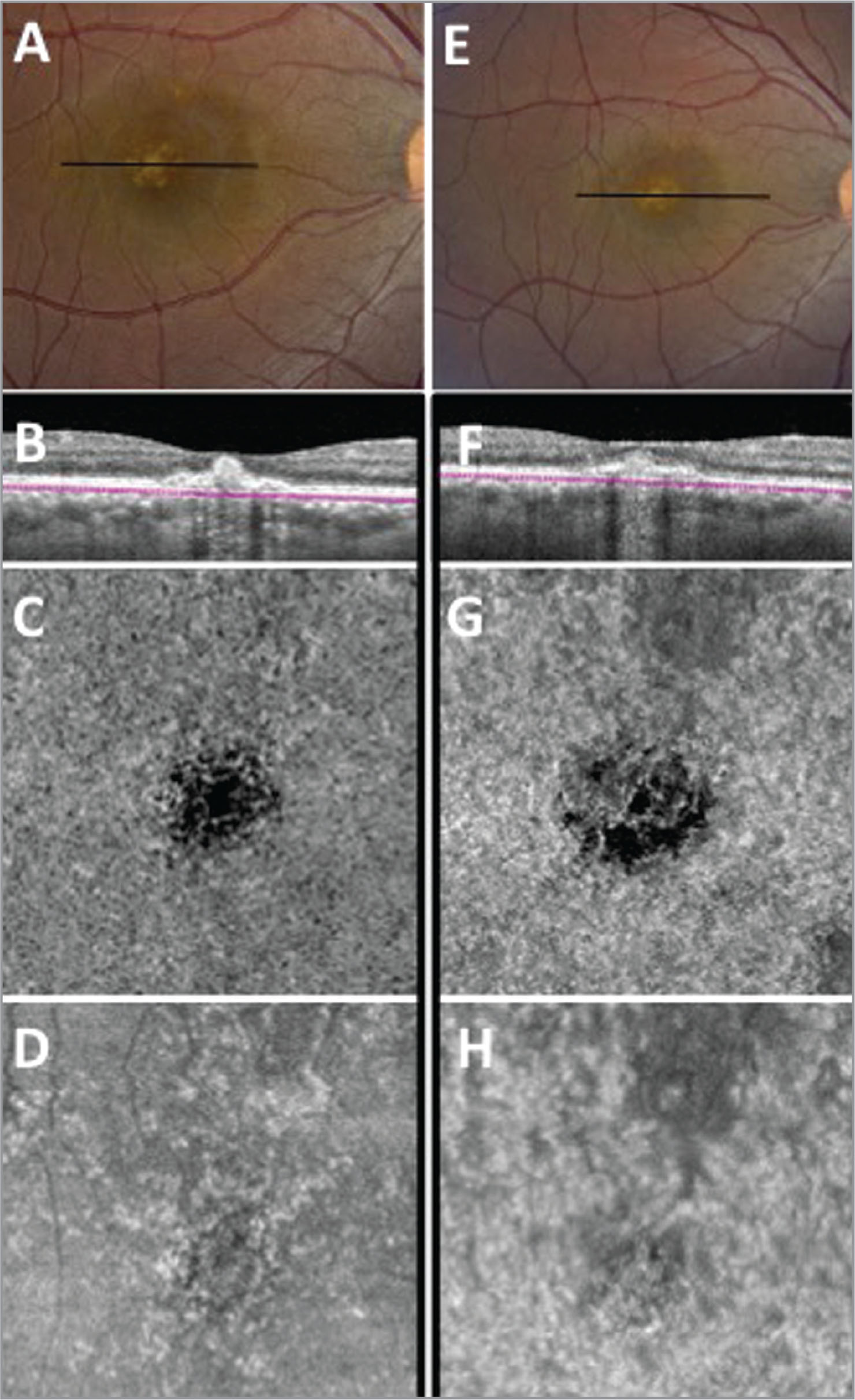 Imaging from weeks 13 and 17 after presentation, before and after bevacizumab therapy. (A) Color fundus image demonstrating persistence of the subfoveal retinal pigment epithelial detachment (PED) 13 weeks after presentation. The line indicates the location of the swept-source optical coherence tomography angiography (SS-OCTA) B-scan in (B). (B) SS-OCTA cross-sectional B-scan with the boundaries depicted for the choriocapillaris flow and structural en face images (C) En face flow image of the choriocapillaris 13 weeks after presentation showing a persistent decrease in flow underlying the inflammatory PED. (D) En face structural image of the choriocapillaris showing good signal intensity. (E) Color fundus image demonstrating persistence of the foveal lesion 4 weeks later, after an injection of intravitreal bevacizumab. The line indicates the location of the subsequent SS-OCTA B-scan in (F). (F) SS-OCTA cross-sectional B-scan with segmentation boundaries for the choriocapillaris. (G) En face flow image of the choriocapillaris with a persistent decrease in flow underlying the PED. (H) En face structural image of the choriocapillaris showing a good signal in the area of decreased choriocapillaris flow underlying the lesion.