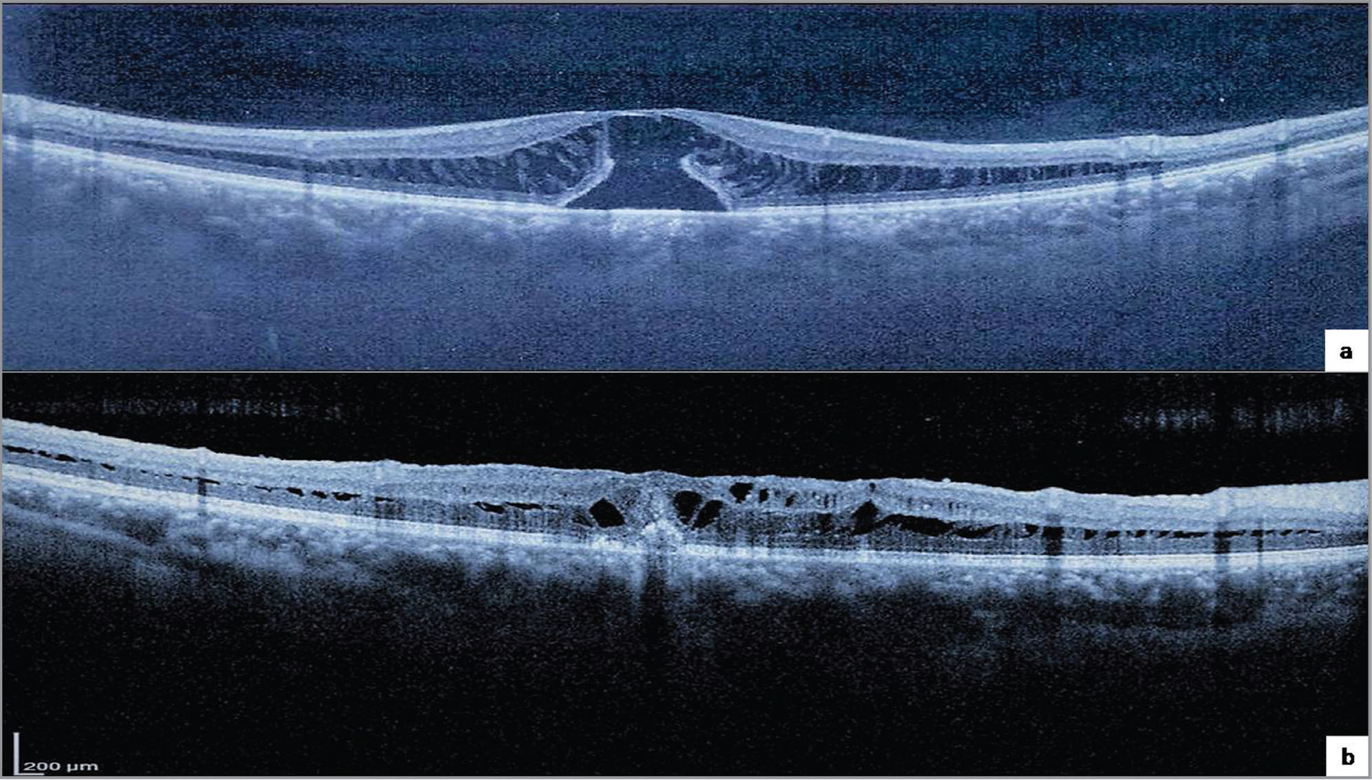 "Spectral-domain optical coherence tomography of the right eye demonstrating (A) macular schisis and a large subfoveal outer retinal defect (base and minimum diameter of the outer retinal defect were 1,020 μm and 680 μm, respectively) with a thin inner layer cap. Subsequent autologous internal limiting membrane ""chunk"" transplantation resulted in (B) regeneration of the external limiting membrane and ellipsoid and interdigitation zones, along with bridging of the outer retinal layer deficiency."