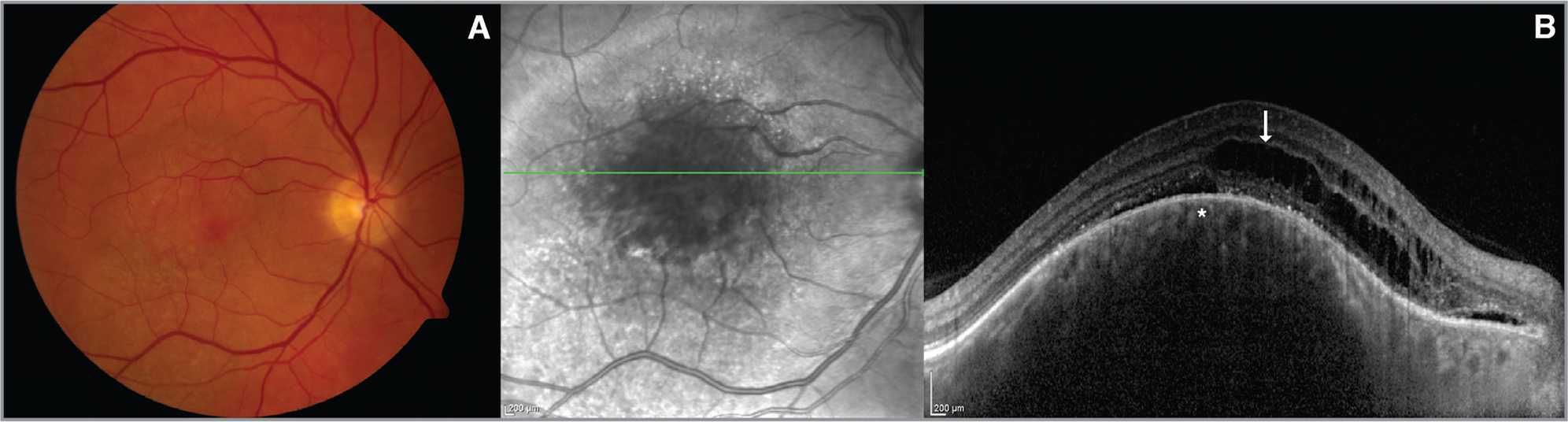 (A) A choroidal hemangioma on the macula. (B) Normal-looking honeycomb-like choriocapillaris (asterisk) with overlying intraretinal fluid (arrow) were visible on enhanced depth imaging optical coherence tomography.
