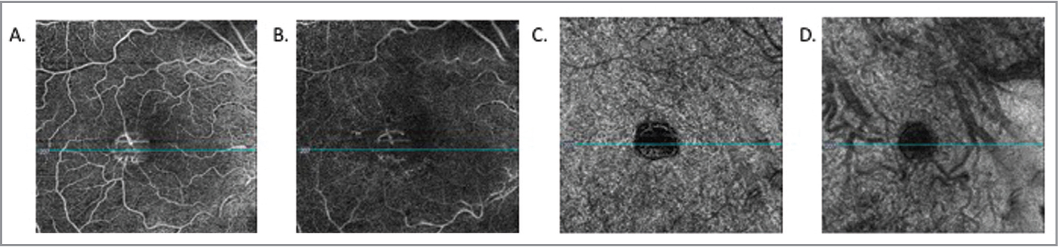 (A) Optical coherence tomography angiography (OCTA) of the inner retina shows vascular flow to the central lesion. (B) OCTA of the deep retina does not show any flow of the deep capillary plexus into or toward the lesion. (C,D) OCTA of the choriocapillaris and choroid show blockage from the lesion of the underlying blood flow.