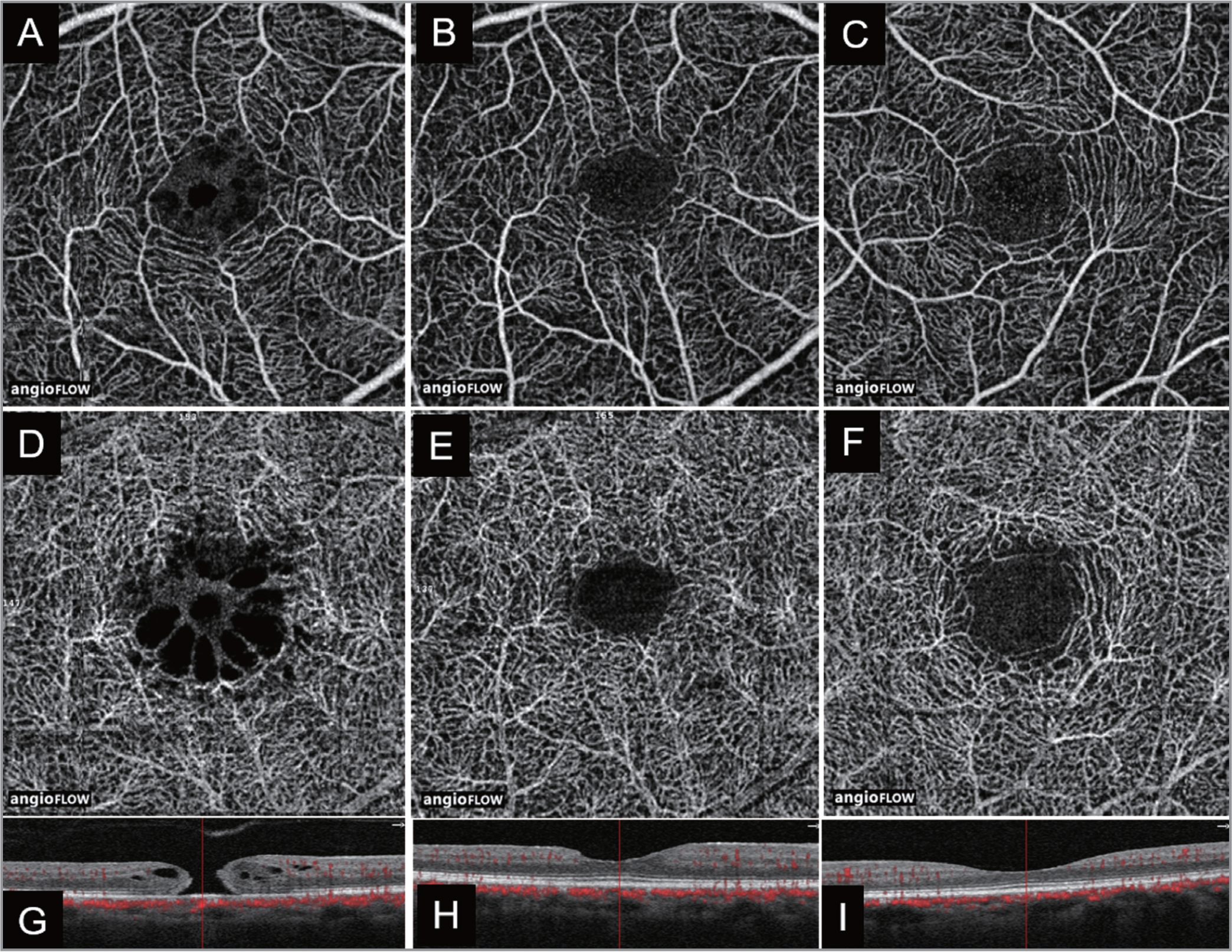 3 mm × 3 mm optical coherence tomography angiography images of an eye with macular hole having a cystic pattern, showing (A) the superficial layer before surgery, (B) the superficial layer 6 months after surgery, (C) the superficial layer in the fellow eye, (D) the deep layer before surgery with the appearance of a cystic structure, (E) the deep layer after surgery (the cyst structure has diminished and the foveal avascular zone is smaller), and (F) the deep layer of the fellow eye. G-I are tomographic images of each eye in A and D, B and E, and C and F, respectively.