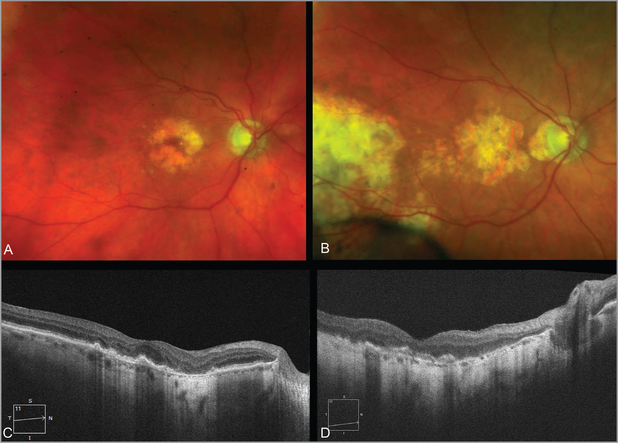 Color fundus photographs of the right eye of the monozygotic identical 96-year-old twin sisters discordant for Alzheimer's disease (AD) (cognitively normal sister is A and the twin with Alzheimer's dementia is B). There is geographic atrophy in both twins that involves the fovea in B and barely spares the fovea in A. In B, there is also chorioretinal scarring temporally from a prior retinal detachment repair. C and D show the corresponding cross-sectional optical coherence tomography B-scans. The subfoveal choroidal thickness was 114 μm in the cognitively normal twin (C) and 75 μm in the twin with AD (D).