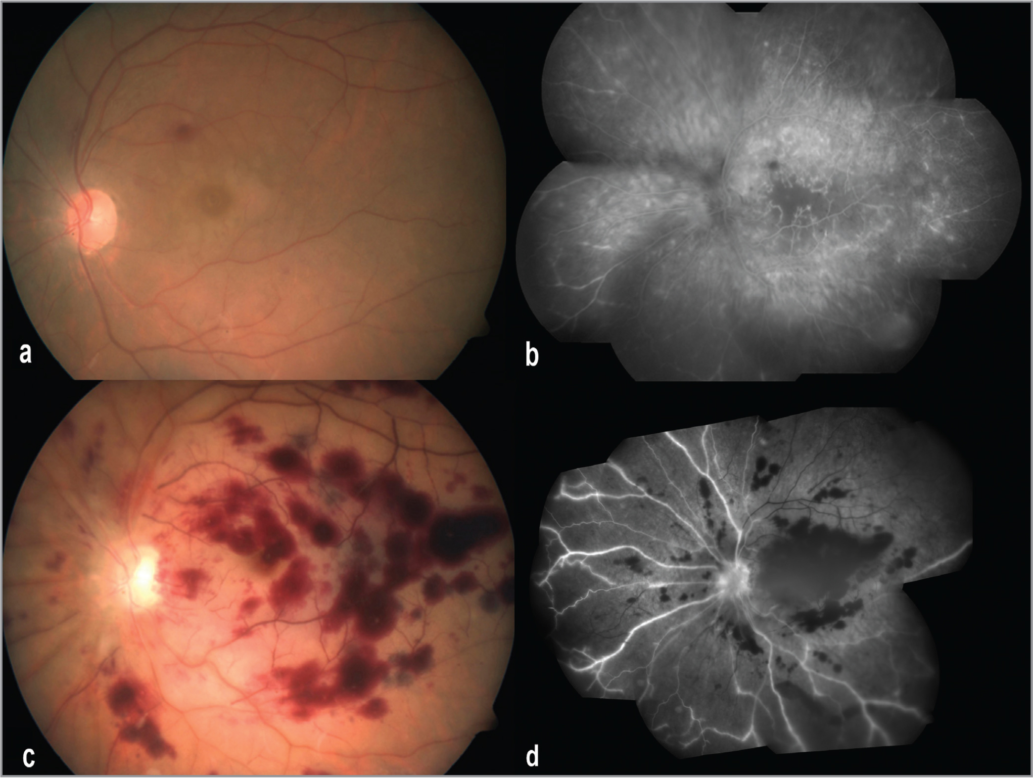 Color fundus photograph of the left eye macula shows retinal whitening, intraretinal hemorrhages (a), retinal ischemia, and perivascular hyperfluorescence (b) in the early phase of gentamicin toxicity (12 hours). The unremitting infarction on day 4 shows profound retinal necrosis (c) and marked ischemia (d).