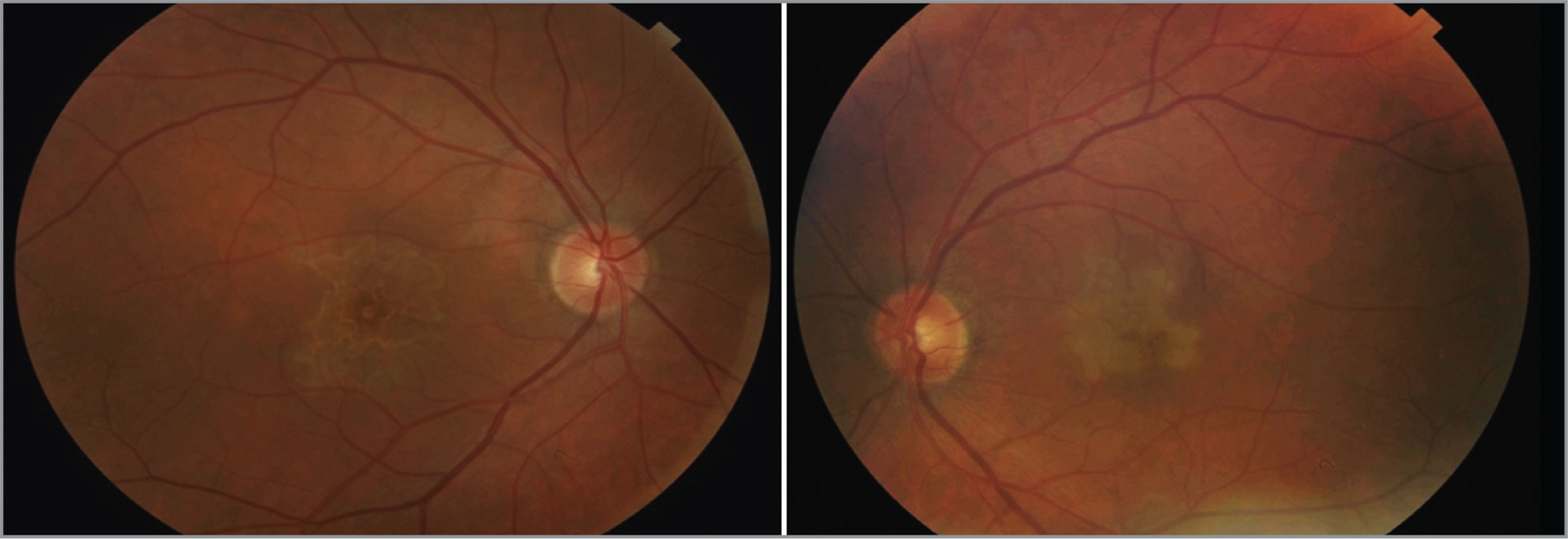 Color fundus photo showing bilateral placoid maculopathy at presentation.