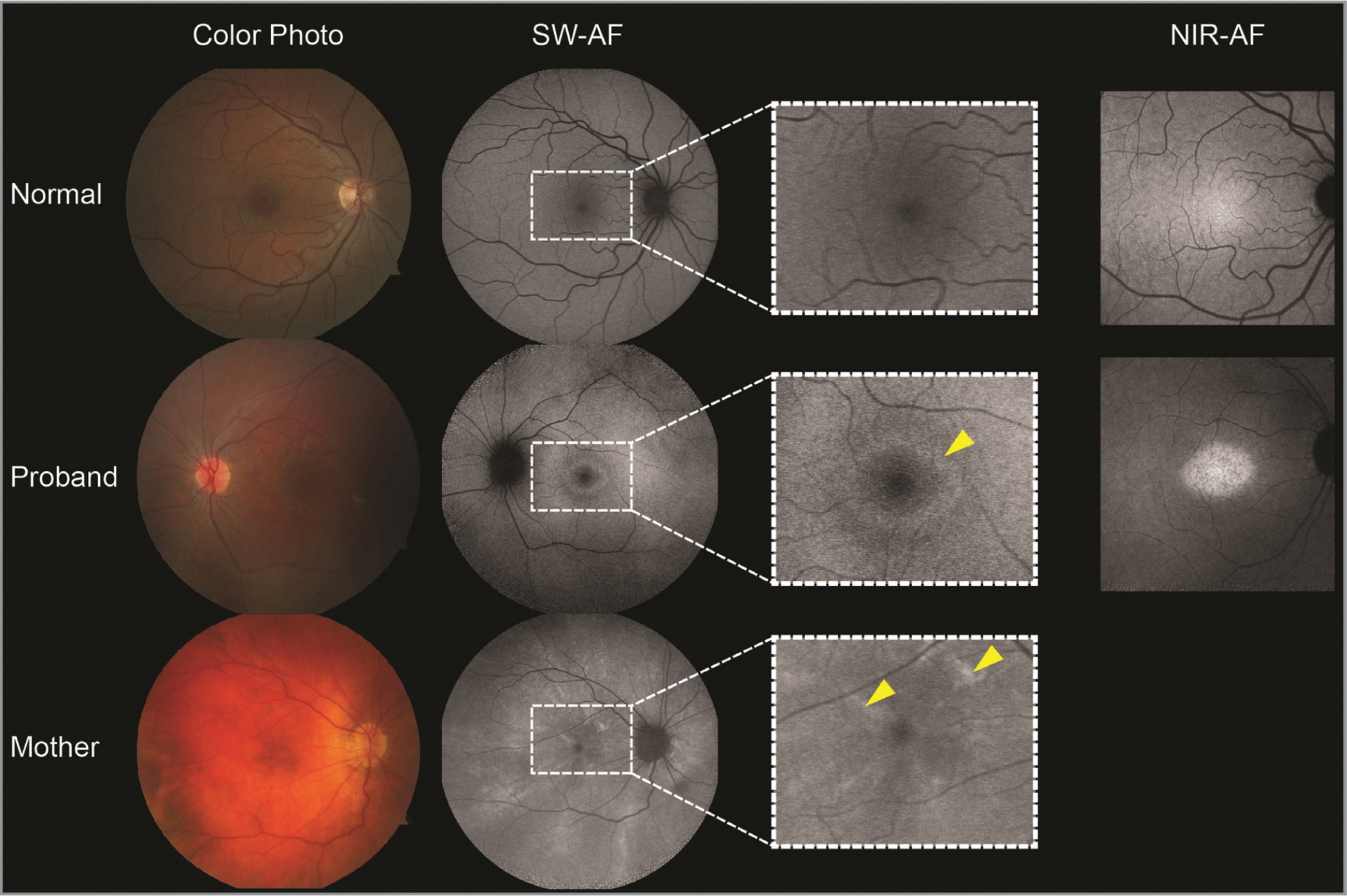 Multimodal imaging of the proband and carrier mother harboring a pathogenic variant in RPGR. A digital color fundus photo (first column), short-wavelength (SW-AF) (second column), and near-IR autofluorescent image (NIR-AF) (last column) are depicted for a healthy young boy (top row), proband (middle row), and carrier mother (last row). The proband shows attenuated arterioles on exam, peripheral retinal pigment epithelium atrophy and a foveal hyperautofluorescent ring (yellow arrow) on SW-AF, and preserved melanization on NIR-AF that is restricted to the area spatially corresponding to within the hyperautofluorescent ring. The carrier mother shows a characteristic tapetal-reflex which is easily seen on SW-AF (yellow arrows) and oriented in a radial pattern.