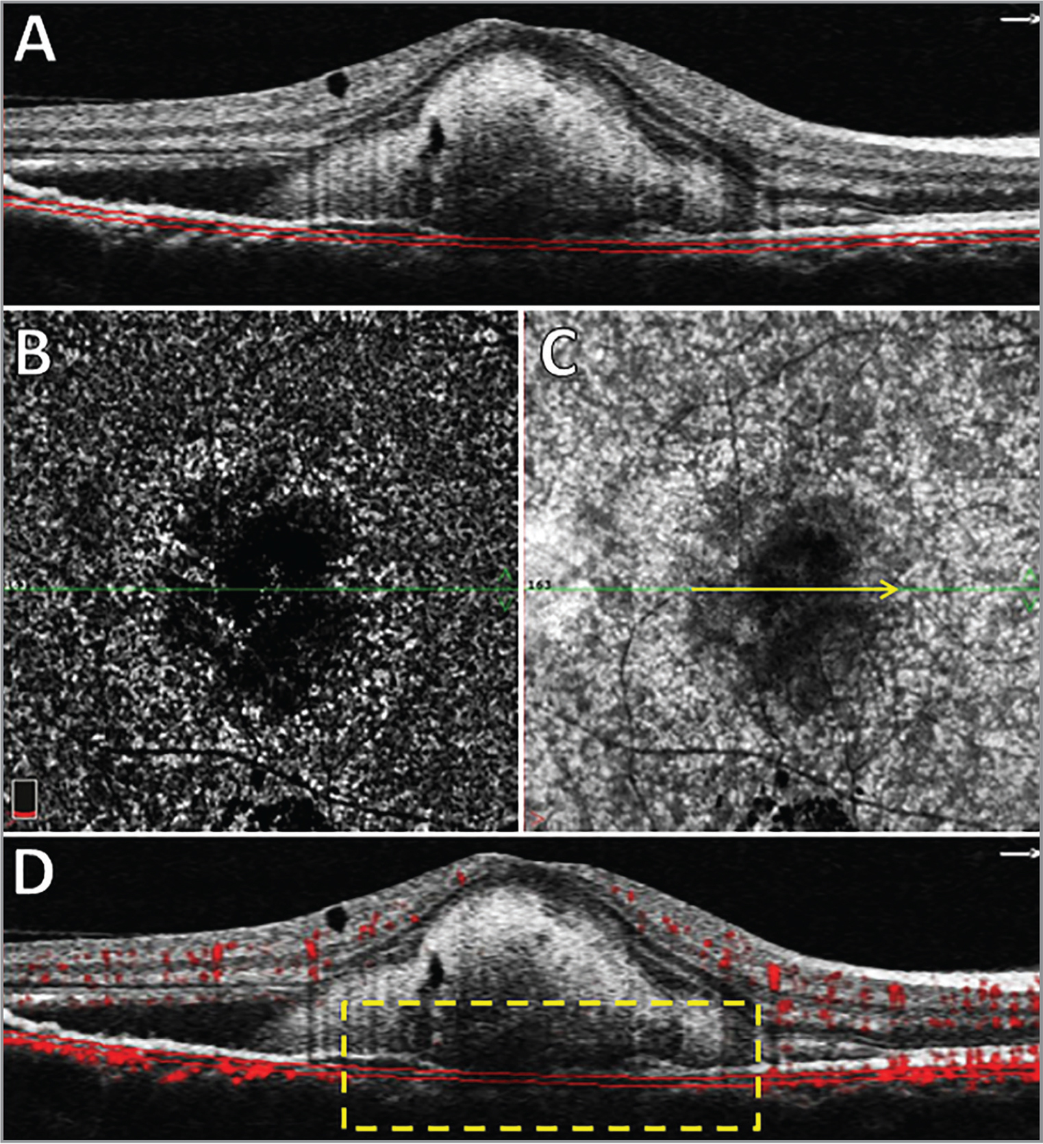 (A) B-scan structural optical coherence tomography (OCT) showing submacular hyperreflective material and subretinal fluid. The parallel red lines indicate the automatic segmentation of the choriocapillaris (CC). (B) En face flow image of the CC, showing a dark central area, suggesting hypoperfusion. (C) Structural image of the CC, showing a hyporeflective central area, revealing an attenuation of the signal from the CC, probably due to interference by the subretinal hyperreflective material. (D) OCT angiography B-scan exhibiting a questionable decrease in the decorrelation signal from the CC (yellow rectangle). The yellow rectangle corresponds to the yellow arrow in C crossing the fovea.