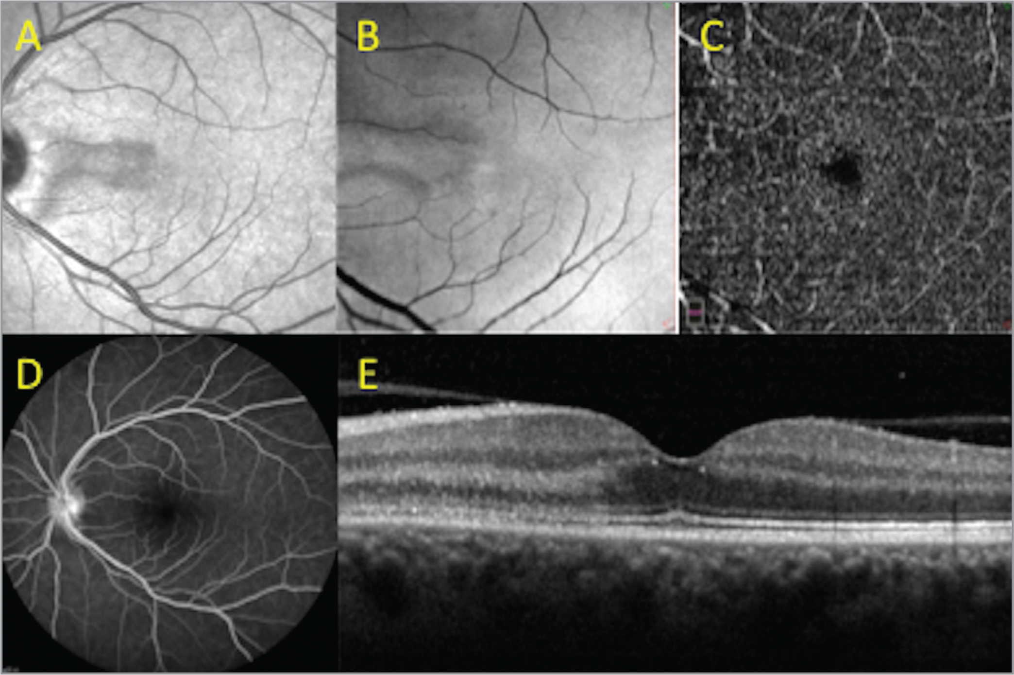 Left eye (OS) of patient 2 at presentation showing a typical hypointense lesion pointing toward the fovea on near infrared reflectance (NIR) (A). En face optical coherence tomography (OCT) segmented at the level of the outer retina showed a hyperreflective paracentral lesion corresponding with NIR findings (B). OCT angiography, 6 mm × 6 mm, at the level of the deep capillary plexus showed a focal loss of capillary network nasal to the avascular foveal center (C). Fundus fluorescein angiography (FFA) showed only mild left disc hyperfluorescence (D). Spectral-domain OCT showed an hyperreflective area at the level of the outer plexiform layer, outer nuclear layer, and ellipsoid zone with preserved retinal pigment epithelium (E).