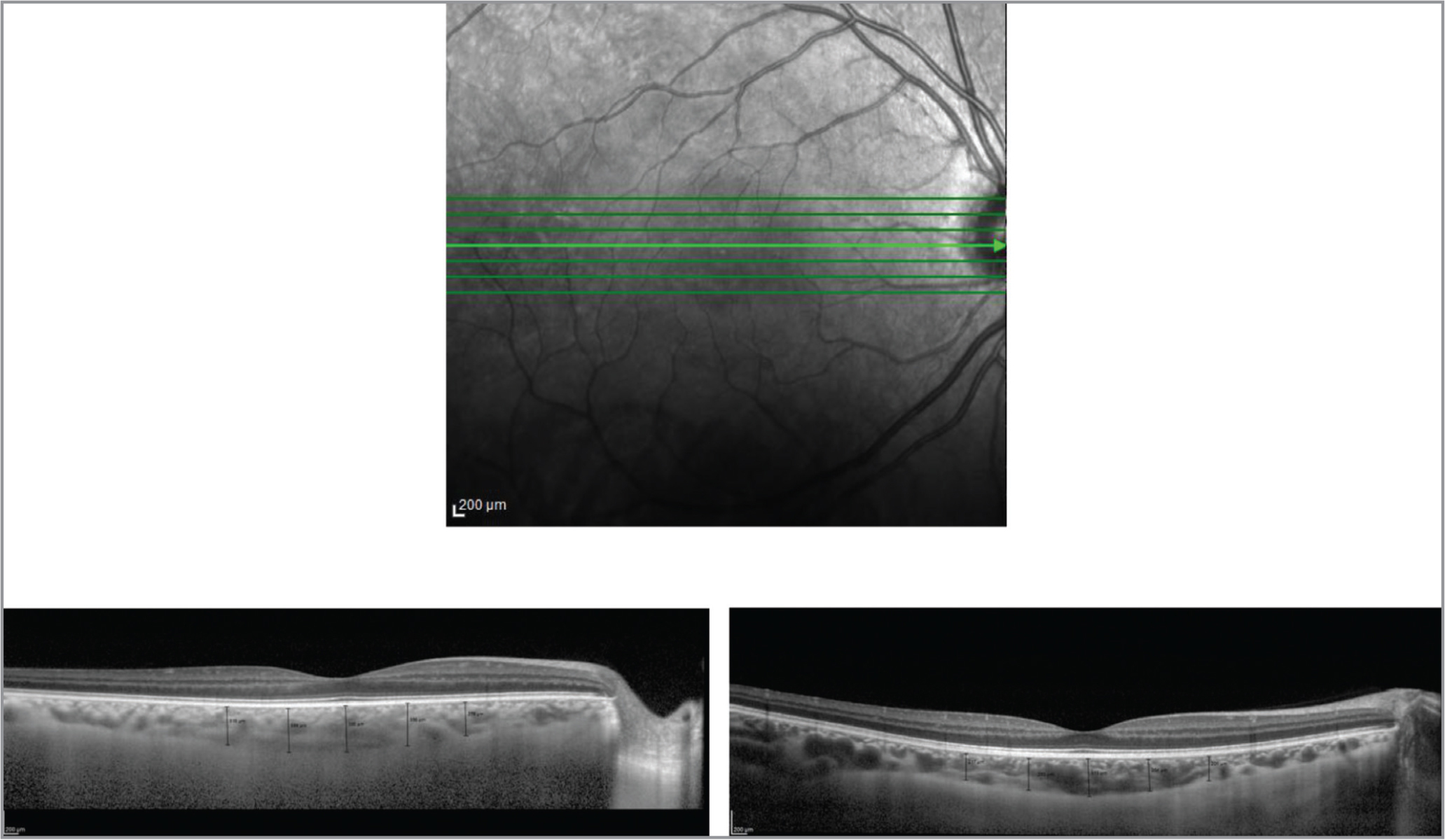 Optical coherence tomography (OCT) scans showing the macular choroidal thicknesses of a patient with keratoconus, and a control subject. (Top) Scanning laser ophthalmoscopy fundus image obtained using Spectralis (Heidelberg Engineering, Heidelberg, Germany) for eye tracking. Seven green lines indicate the location and direction of the scan pattern. The marked green line passed directly through the center of the fovea. (Bottom left) An OCT image of a 21-year-old patient with keratoconus obtained using Spectralis. Image averaging performed with the aid of eye tracking and enhanced depth imaging are used for choroidal visualization. Black lines indicate choroidal thickness measurements at the fovea, 0.75 mm and 1.5 mm temporal to the fovea, and 0.75 mm and 1.5 mm nasal to the fovea. (Bottom right) An OCT image of an 18-year-old control subject obtained using Spectralis.