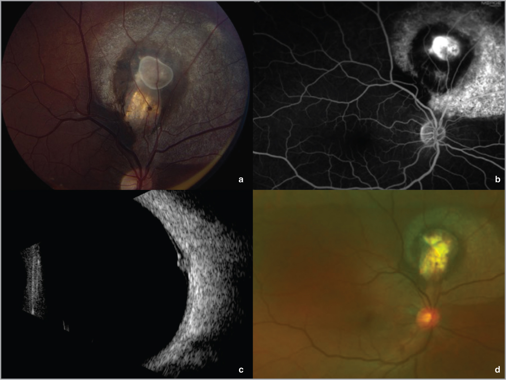 (a) A subretinal cyst is seen superior to the optic nerve with adjacent subretinal fluid and circumferential retinal pigment epithelium (RPE) atrophy in the right eye without macular or optic nerve involvement. (b) Fluorescein angiography shows early phase staining of the cyst wall, late-phase pooling of fluorescein in the subretinal space, and window defects in the area of surrounding RPE atrophy. (c) An irregularly shaped lesion is seen with medium to high reflectivity with adjacent subretinal fluid on B-scan. (d) Stable retinal atrophy is seen in the area of the previous cyst with attached retina and normal macula.