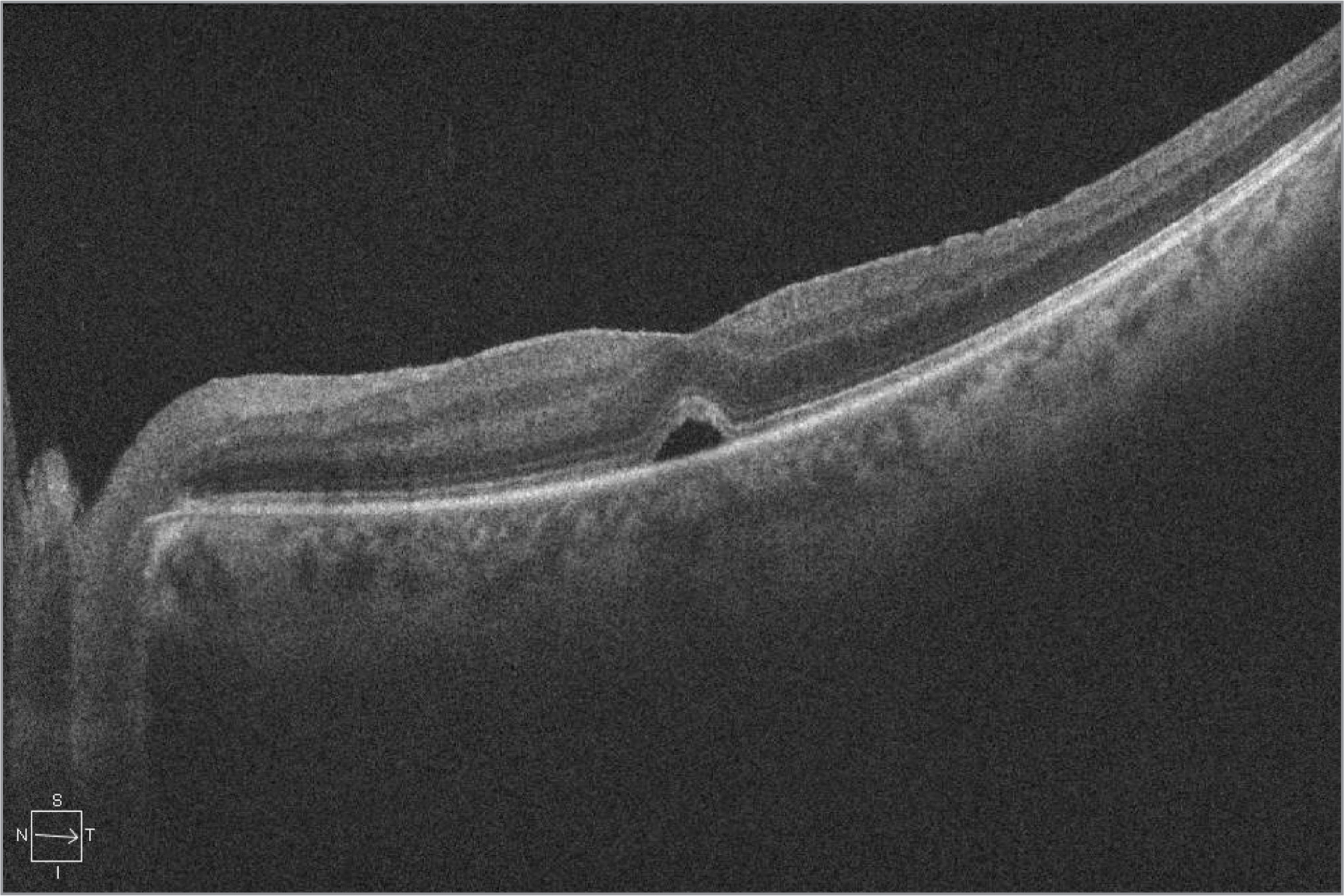 Spectral-domain optical coherence tomography demonstrating outer retinal defect following macular hole repair.