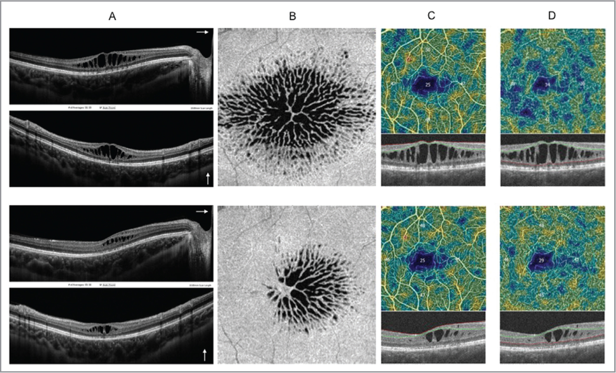 Images of the right eye of the proband (III:3) before and after treatment with oral 250 mg acetazolamide tablets twice daily and 2% dorzolamide collyrium. Spectral-domain optical coherence tomography (OCT) images from the vertical and horizontal scans centered on the fovea showing schisis in the ganglion cell layer in the parafoveal region and in the inner nuclear layer from the foveal to the extrafoveal region (A, top panel). En face OCT showing schitic cysts in a radial pattern in the foveal and parafoveal areas before treatment (B, top panel). Corresponding OCT angiography (OCTA) perfusion maps showing vessel density reduction in the foveal and parafoveal areas in the superficial and deep capillary plexuses (C and D, top panel, respectively). After treatment, there is a reduction of central retinal thickness (A, bottom panel) on spectral-domain OCT and partial resolution of schitic cysts particularly in the temporal area (B, bottom panel) on en face OCT. Vessel density partially increases after treatment on OCTA (C and D, top and bottom panels).