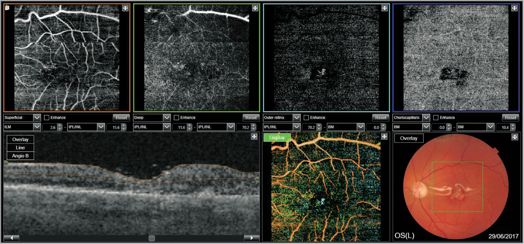 Optical coherence tomography angiography at 3-month follow-up with normal retinal circulation. The top four boxes present en face sections: of the superficial retina, deep retina, superficial choriocapillaris, and deep choroid. Cross-sectional cut in the bottom was used to delineate en face cuts.