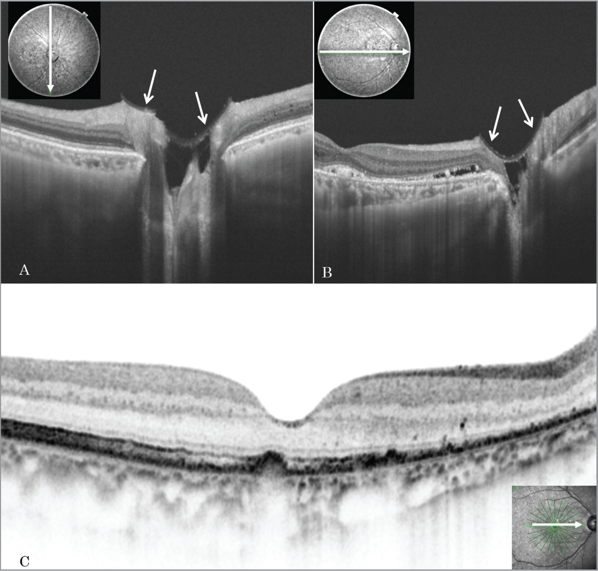 Postoperative optical coherence tomography (OCT) image in Case 1. (A, B) The anterior capsule shows that satisfactory fixation onto the optic disc has been achieved, based on vertical and horizontal swept-source OCT scans (arrows). (C) Complete disappearance of retinal detachment 2 months postoperatively.