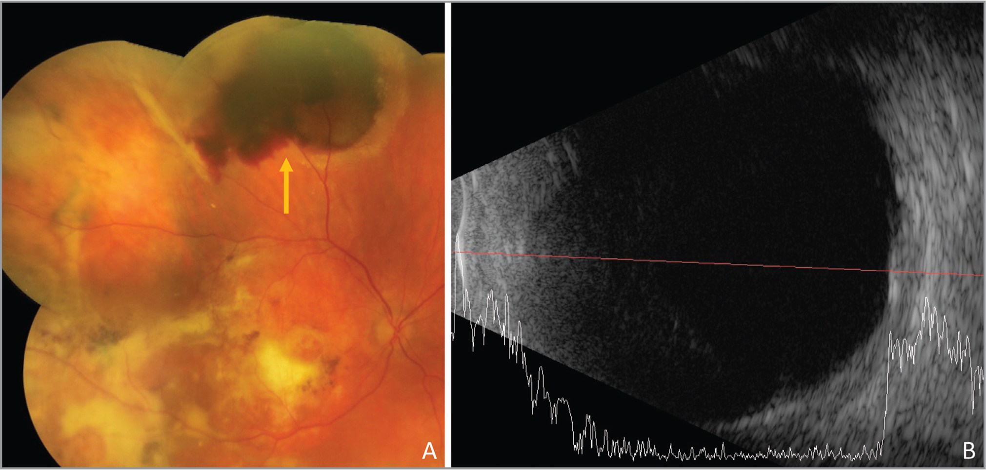 Peripheral exudative hemorrhagic chorioretinopathy (arrow) in an asymptomatic 92-year-old male with end-stage age-related macular degeneration (A). The A-scan showed a relatively flat subretinal lesion with high internal reflectivity (B).