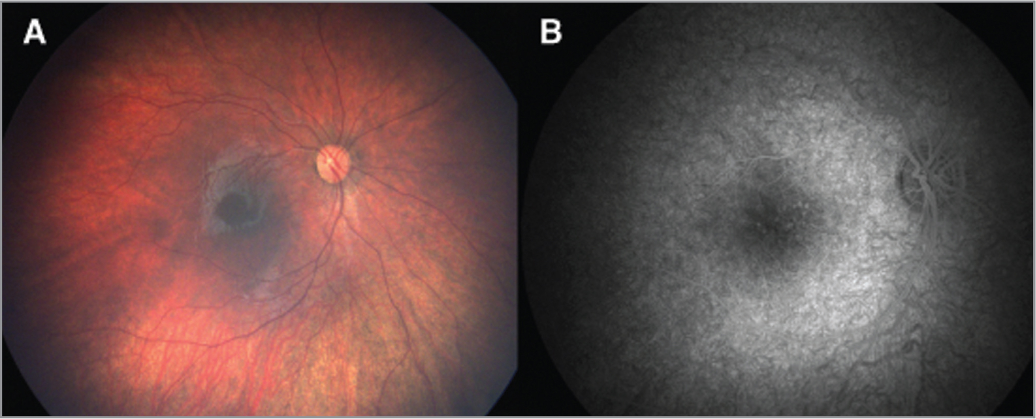 Patient 1. Wide-angle fundus and fluorescein angiography images obtained from an infant with congenital Zika syndrome. (A) Unremarkable fundus in the right eye (OD). (B) Window defects in the macula OD.