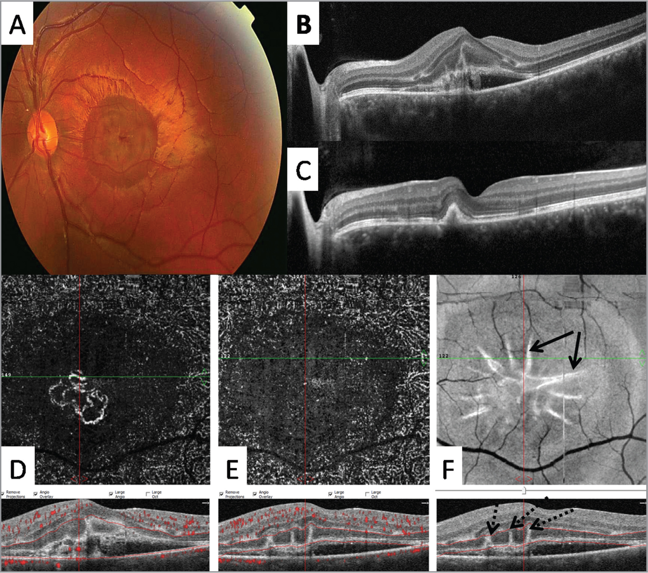 "Color fundus photography (A), optical coherence tomography (OCT) (B, C), en face OCT angiography (OCTA) (D, E), and en face structural OCT (F) images from a 10-year-old boy with laser-induced choroidal neovascularization (CNV). Linear hyperreflective lesions (ie, ""pitchfork"" sign) are noted with the baseline cross-sectional OCT (B; F, dashed arrows) but display a remarkable spiked-wreath pattern with the baseline en face OCT segmented at the level of the outer retina (F, solid arrows). The radial hyperreflective spikes resolved after intravitreal bevacizumab therapy (C). Note the evolution into a type 1 CNV lesion (C). Type 2 CNV is identified with en face OCTA (D). No vascular flow signal is noted corresponding to the hyperreflective spikes with the baseline en face OCTA image (E)."