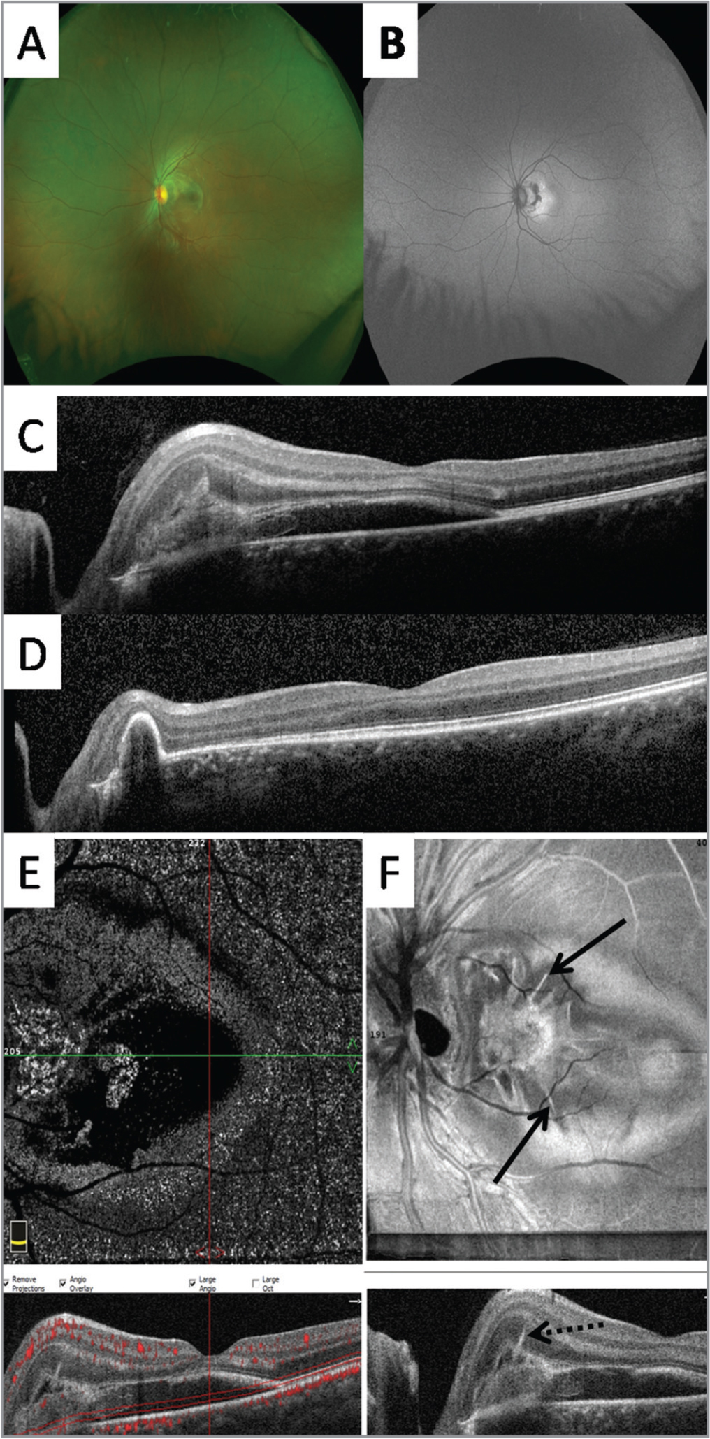 Pseudocolor fundus image (A), fundus autofluorescence (B), optical coherence tomography (OCT) (C, D), en face OCT angiography (OCTA) (E), and en face structural OCT (F) from a 13-year-old girl with idiopathic choroidal neovascularization (CNV). Pitchfork spikes associated with subretinal hyperreflective material are noted with the baseline cross-sectional OCT (C; F, dashed arrow) and resolved after two intravitreal ranibizumab injections. The type 2 CNV lesion confirmed with OCTA evolved to a type 1 lesion (D). Note the remarkable spiked-wreath pattern of the lesion with baseline en face OCT (F, solid arrow) with segmentation adjusted to the outer retina.