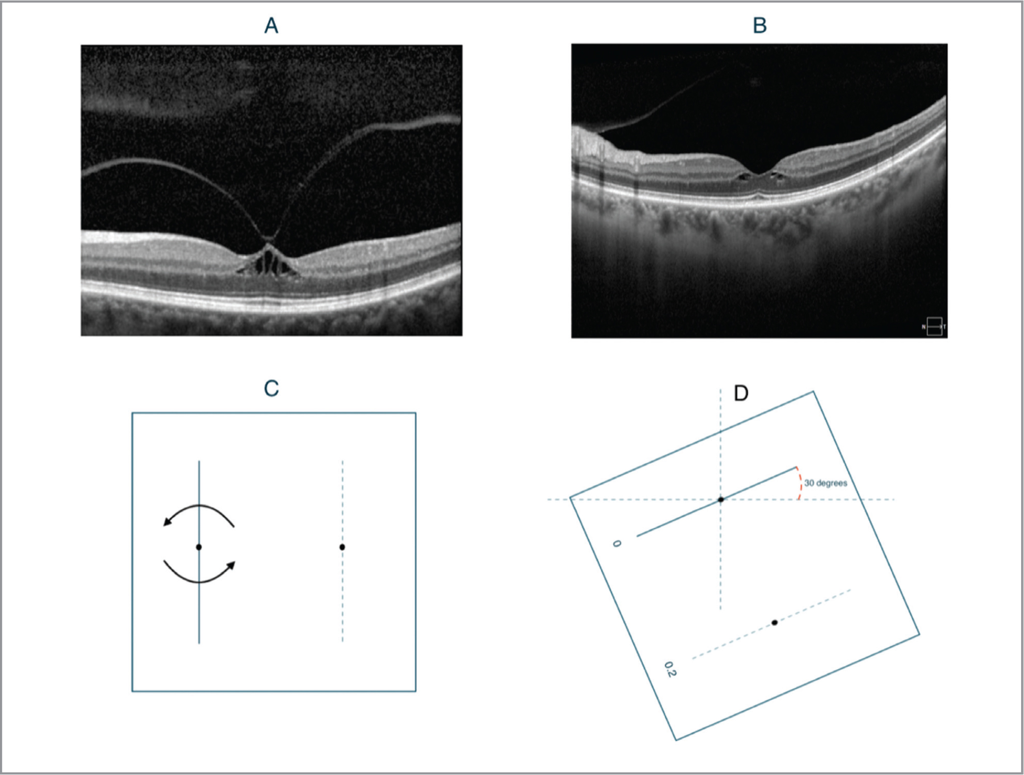 (A) Spectral-domain optical coherence tomography (SD-OCT) of the patient's left eye at her initial visit demonstrating focal vitreomacular traction with cystoid foveal edema. Only horizontal slices were obtained at the time of image capture, so this image represents a horizontal slice through the fovea. (B) SD-OCT of the patient's left eye taken in at her follow-up visit demonstrating interval release of traction, yet persistent parafoveal fluid cysts. The contour of her central fovea has almost fully returned to a physiologic position. This image represents a cross-sectional slice oriented 30° above the horizontal axis, along approximately the same plane as that of the M-CHARTS testing booklet at which the patient saw maximal distortion. (C) Schematic diagram demonstrating the axis of rotation of the M-CHARTS testing booklet about an axis perpendicular to the center of the page, emanating from the central fixation point. The solid vertical line represents the index test figure for detection of metamorphopsia. Our patient noted no metamorphopsia when presented, as recommended, with both a vertical a horizontal testing target separately. (D) After presenting the patient with a variety of M-CHARTS testing target orientations over 360°, maximal distortion was reported by our patient at a meridian located 30° above the X axis.