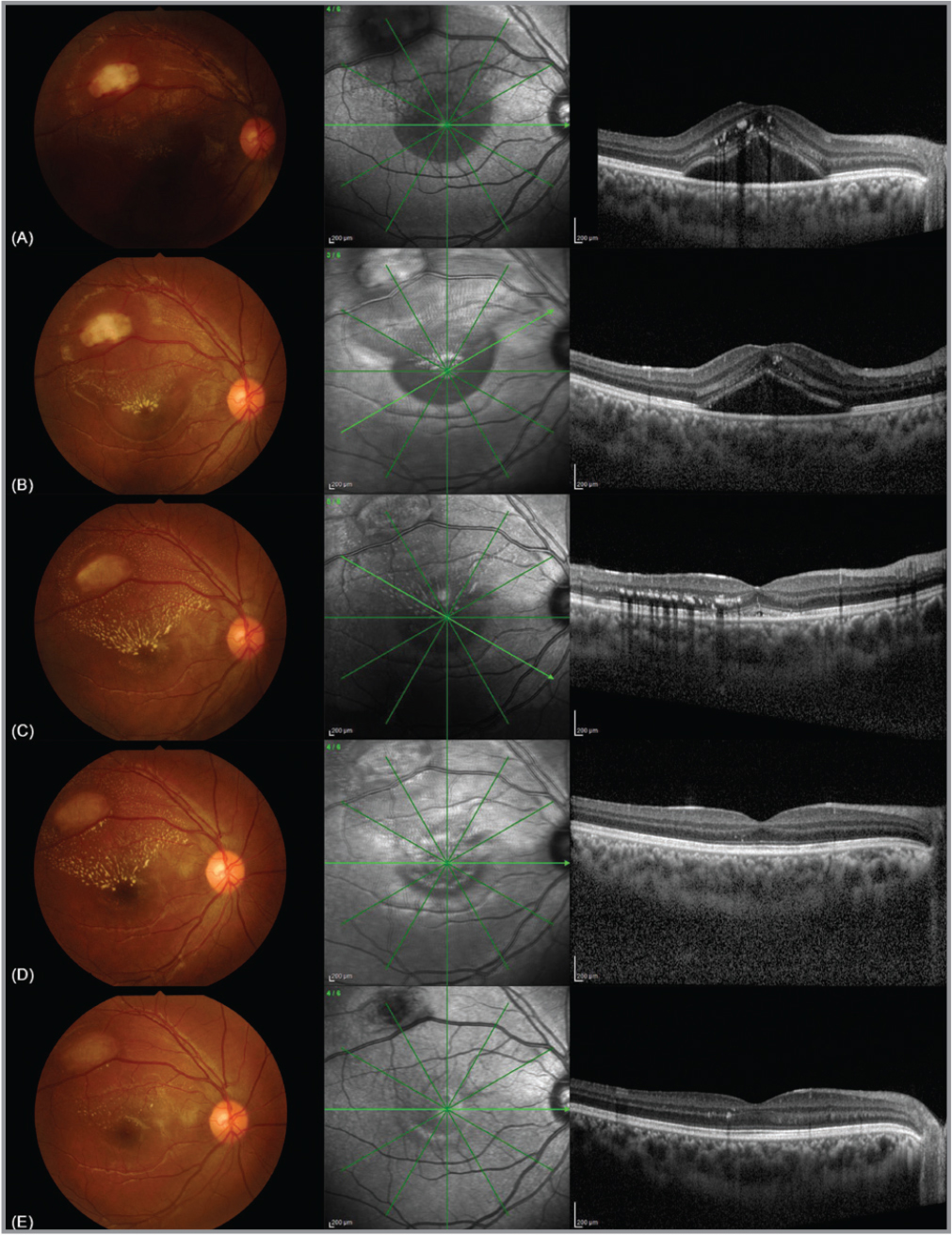 Color fundus and optical coherence tomography images of the macula (A) at presentation, (B) 1-week follow-up, (C) 4-week follow-up, (D) 8-week follow-up, and (E) 10-month follow-up