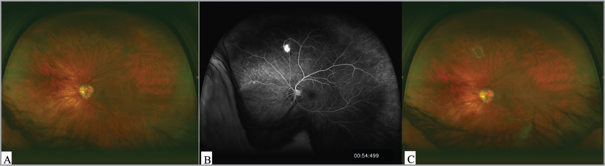 Retinal hemangioblastoma missed on widefield fundus photo (A) but readily visible on widefield fluorescein angiogram (B), allowing early laser photocoagulation treatment (C).