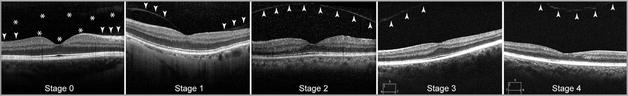 Staging of posterior vitreous detachment on macular optical coherence tomography scan. (Stage 0) Intact posterior vitreous with visualization of an attached posterior vitreous cortex (arrows). The anatomical borders of the pre-macular bursa can be seen as a hyporeflective preretinal space (asterisks). (Stage 1) Perifoveal vitreous detachment with vitreous adhesion to the fovea. (Stage 2) Perifoveal vitreous detachment and no vitreofoveal adhesion, with the posterior vitreous trending toward the peripheral retina. (Stage 3) Near-complete vitreous detachment except for vitreopapillary adhesion, the posterior vitreous can be seen trending toward the optic nerve. (Stage 4) Complete posterior vitreous detachment, with the posterior vitreous cortex retracting toward the center of the vitreous cavity.