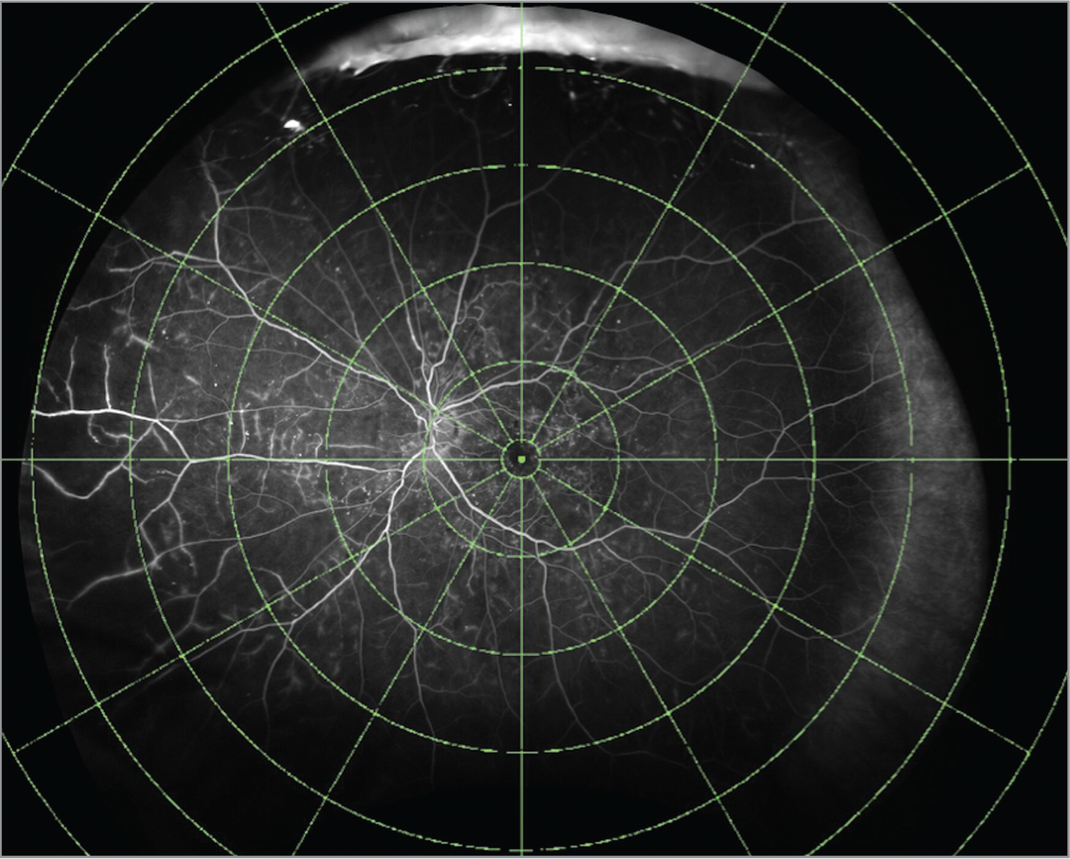 Ultra-widefield fluorescein angiography with concentric rings overlay.