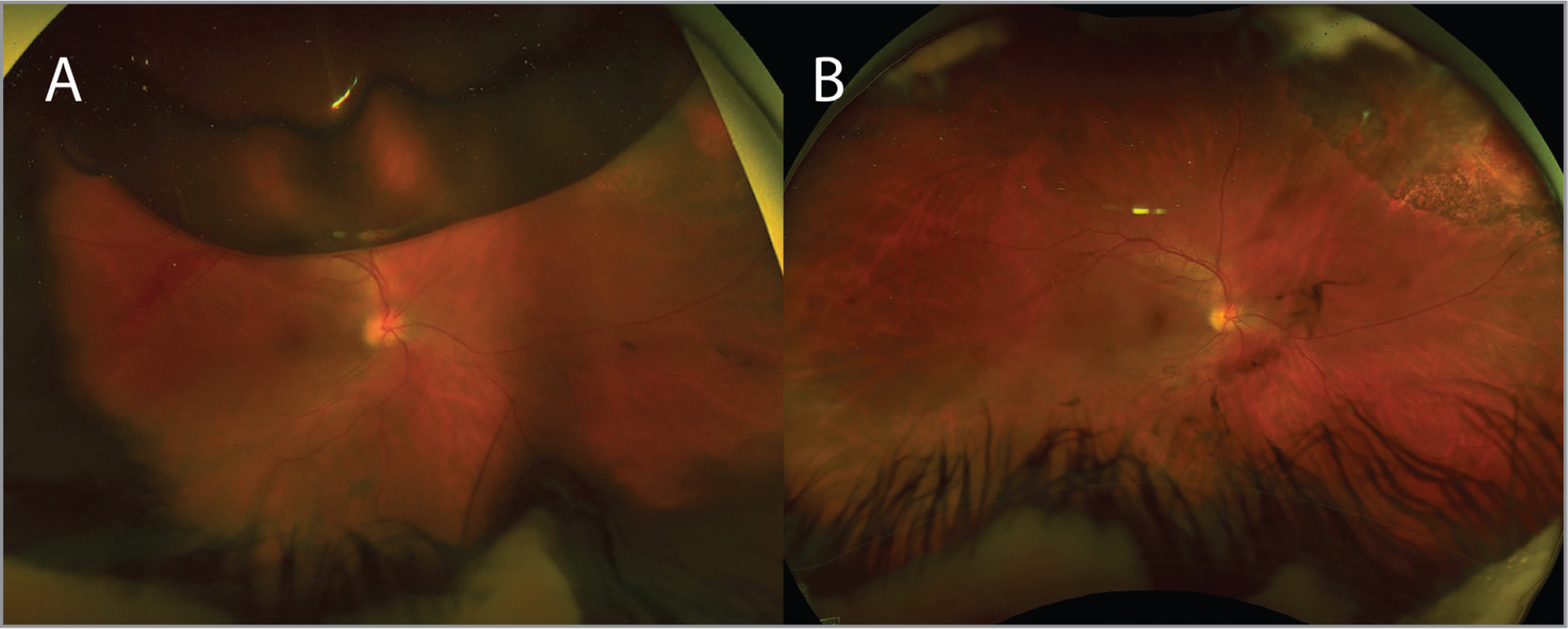 (A) Widefield fundus photo of the right eye (OD) at the 1-week postoperative visit demonstrating attached retina and approximately 20% to 25% gas bubble fill. (B) Widefield fundus photo OD at the 1-month postoperative visit demonstrating attached retina, chorioretinal scar corresponding to cryotherapy treatment area, resolving vitreous hemorrhage, and fully resorbed gas bubble.