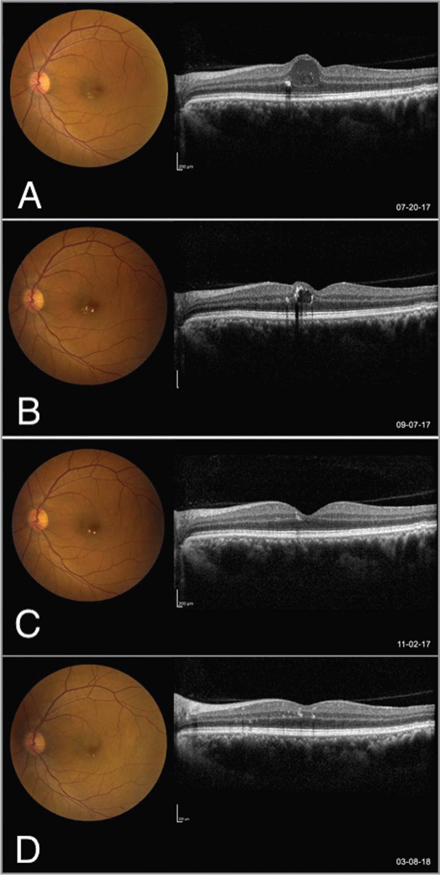 Color fundus photos (left) and optical coherence tomography (OCT) (right) of left eye at presentation (A), week 7 (B), week 15 (C), and month 8 (D). Presence of intraretinal fluid decreased spontaneously over time. In panels A and B, as fluid decreased on OCT, hyperreflective material and hard exudates increased. Over time, hyperreflective material on OCT and hard exudates on examination improved.