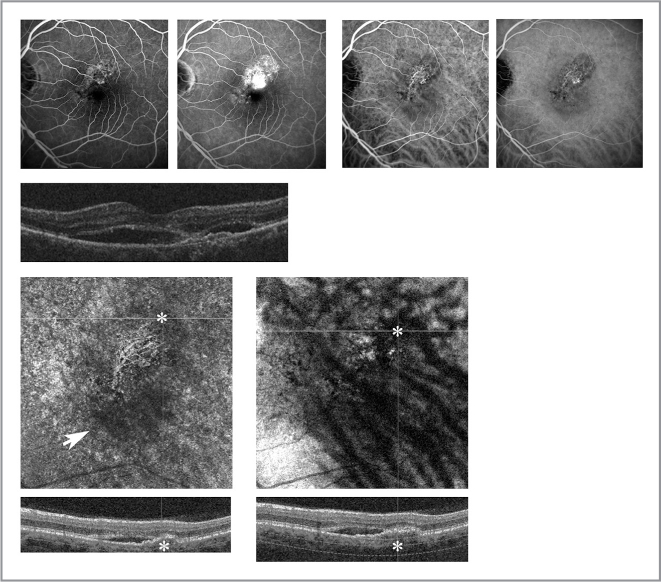Multimodal imaging of chronic central serous chorioretinopathy (CCSC). Top row: Fluorescein angiography demonstrating superior parafoveal early hyperfluorescence (first panel) with late leakage (second panel) in the left eye of a patient with CCSC. Early punctate staining is also visible at the nasal parafovea. Indocyanine green (ICG) angiography clearly delineating a type I choroidal neovascular membrane (CNVM) (third and fourth panel). Second row: B-scan of superior paracentral macula demonstrating subretinal fluid and an irregular, flat pigment epithelial detachment (PED). En face optical coherence tomography angiography (OCTA) with choriocapillaris segmentation (third row, left) demonstrating central flow void (white arrow) with CNVM, which corresponds poorly to irregular PED (asterisks, third and fourth rows, left). En face OCTA with segmentation of Haller's and Sattler's layers (third row, right) demonstrating focal large vessel dilatations corresponding more closely to irregular PED (asterisks, third and fourth rows, right).