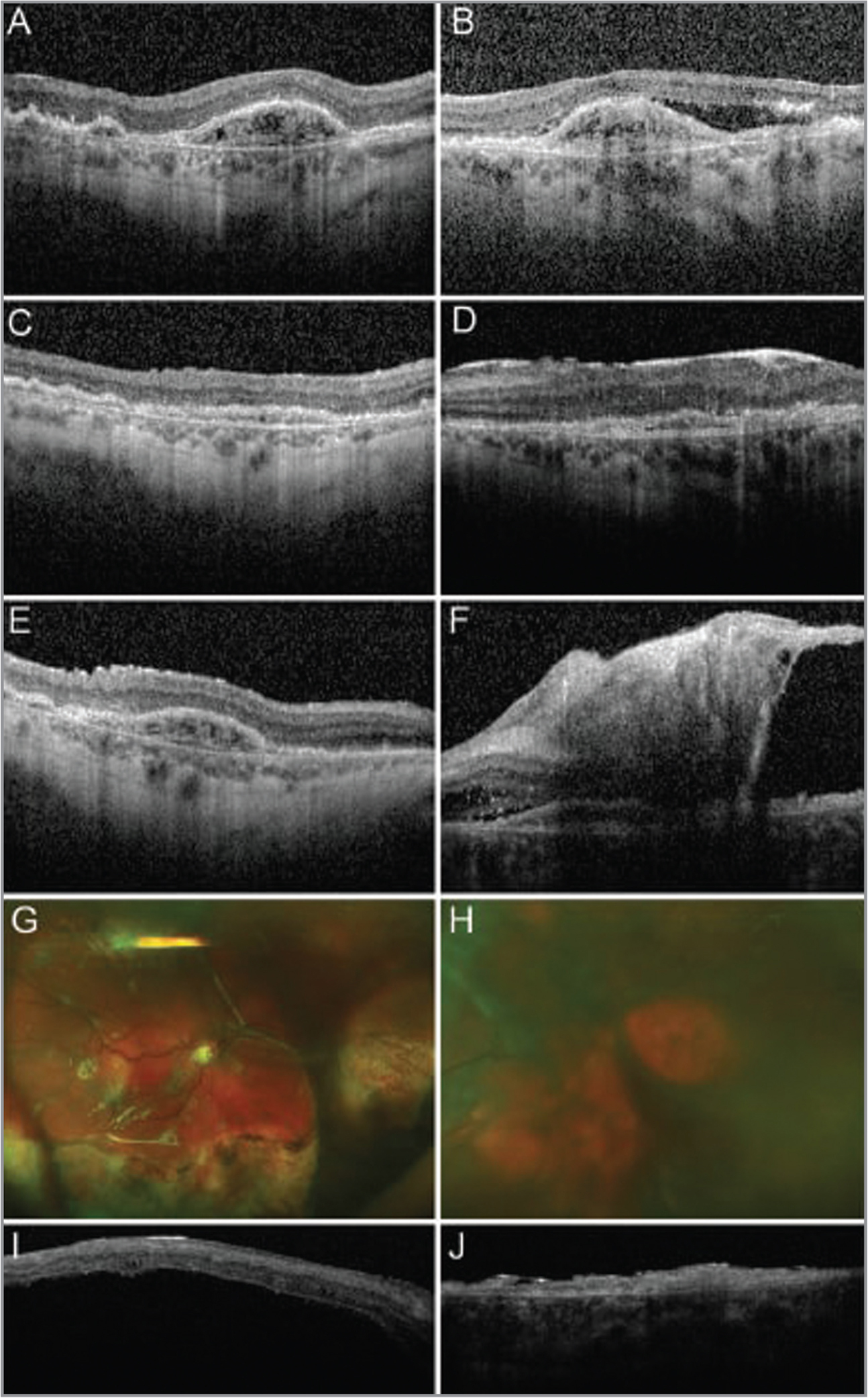 "Baseline optical coherence tomography (OCT) images are shown 4 months prior to autologous ""stem cell"" injections (ASCIs) in the right (A) and left (B) eyes. Three weeks after ASCI, the normal retinal contour was blunted by epiretinal membrane (ERM) formation in the right (C) and left (D) eyes. Vitreous hemorrhage and debris were noted bilaterally. Five weeks after ASCI, the ERM in the right eye progressed, resulting in progressive irregularities in the retinal contour (E). The left eye developed a tractional retinal detachment (RD) (F). By 7 months after ASCI, the patient had undergone a retinal detachment repair in the right eye at an outside institution. Fundus photographs show recurrent rhegmatogenous /tractional RDs with proliferative vitreoretinopathy in the right (G) and left (H) eyes. The view in the left eye is limited by a brunescent cataract. OCT imaging showed detachment of the right macula with a thin, hyperreflective overlying membrane (I). OCT imaging of the left eye showed thinned and atrophic retina with a thin, hyperreflective overlying membrane (J)."
