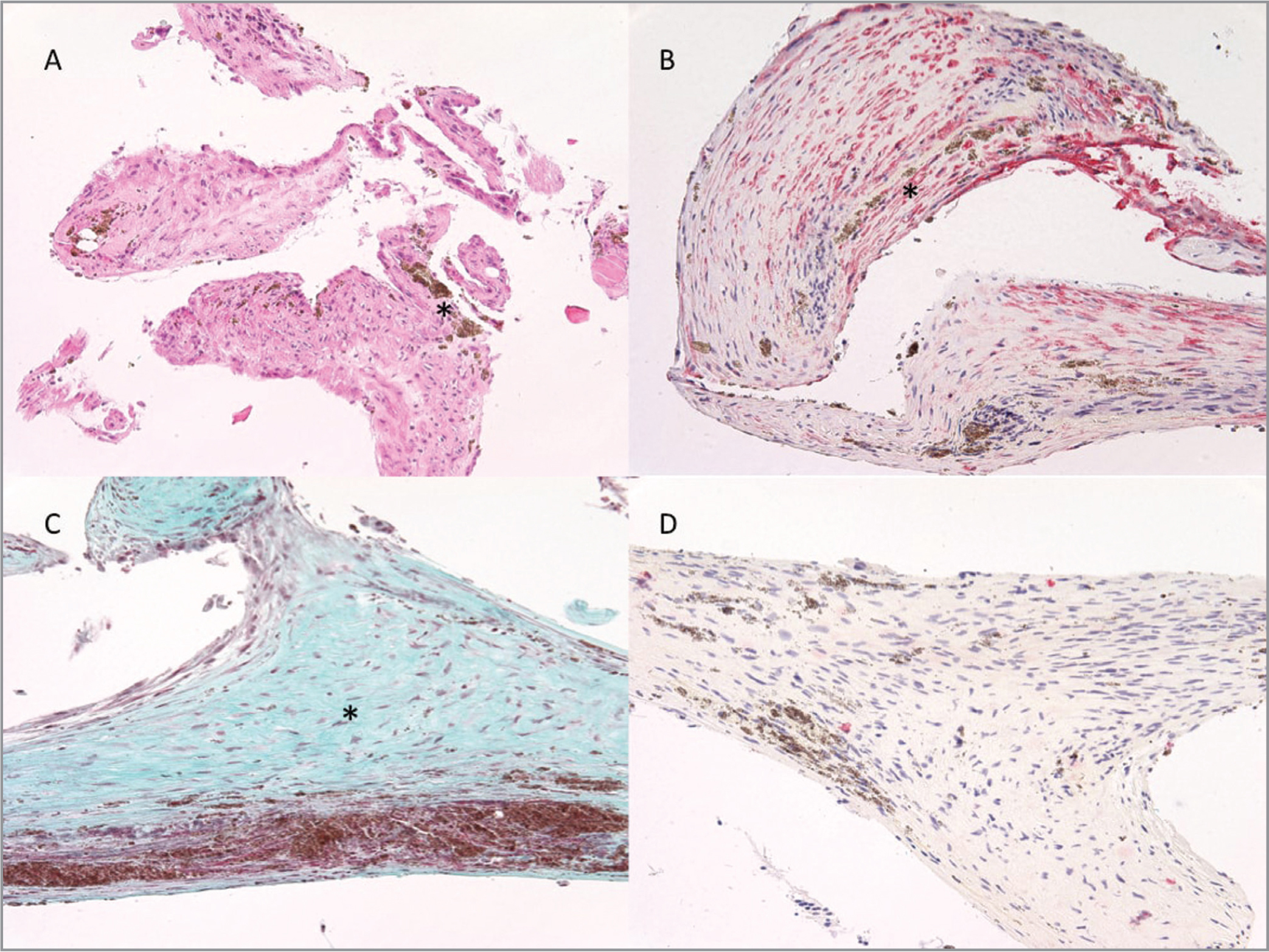 (A) Histology of subretinal band from Case 1 demonstrates a fibrovascular tissue that contained an admixture of pigment-containing cells (asterisk) and spindle-shaped cells with fragments of glial tissue (presumed neural retina). Foci of dropout spaces were present, consistent with silicone oil (hematoxylin-eosin, original magnification ×200). (B) The membrane stained strongly positive with Smooth Muscle Actin immunostain (Leica Biosystems, Wetzlar, Germany), colored red and marked with an asterisk (original magnification ×200). (C) The specimen was positive for collagen deposition with Masson's trichrome, colored green and marked with an asterisk (original magnification ×200). (D) CD34 immunostain (Leica Biosystems, Wetzlar, Germany) was negative (original magnification ×200).