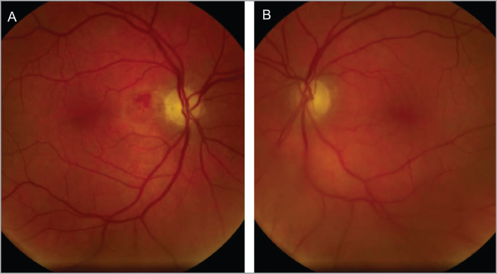 "(A) Fundus photo of the right eye taken 1 week after autologous ""stem cell"" injections (ASCIs) shows a peripapillary hemorrhage, which is most likely secondary to the injection into the optic nerve. The media is mildly hazy due to presence of vitreous cells. (B) Fundus photo of the left eye shows hazy media due to vitreous cells. Both eyes had optic nerve pallor prior to ASCI."