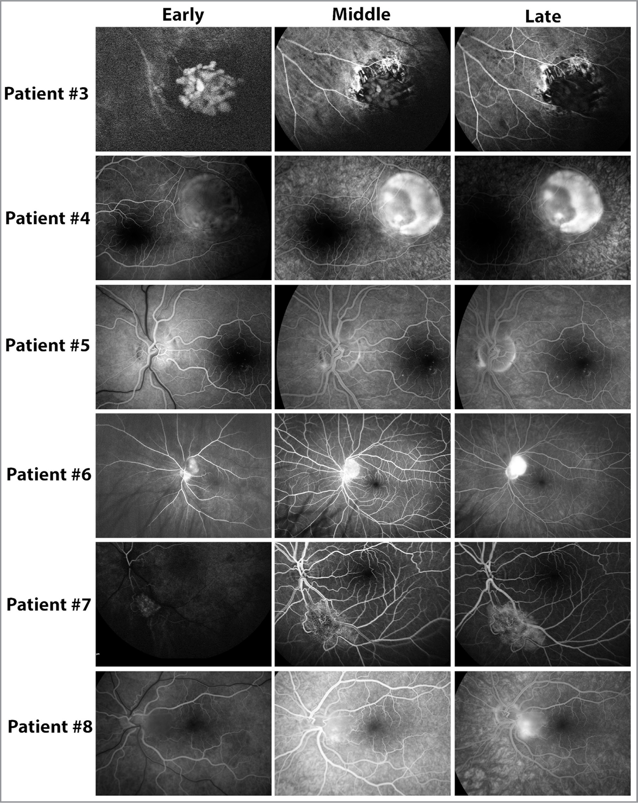 Fundus fluorescein angiography of six patients upon presentation. Images are numbered corresponding to the patient labels consistent in other Tables and Figures. Two patients did not undergo fluorescein angiogram (Patient No. 1 and No. 2).