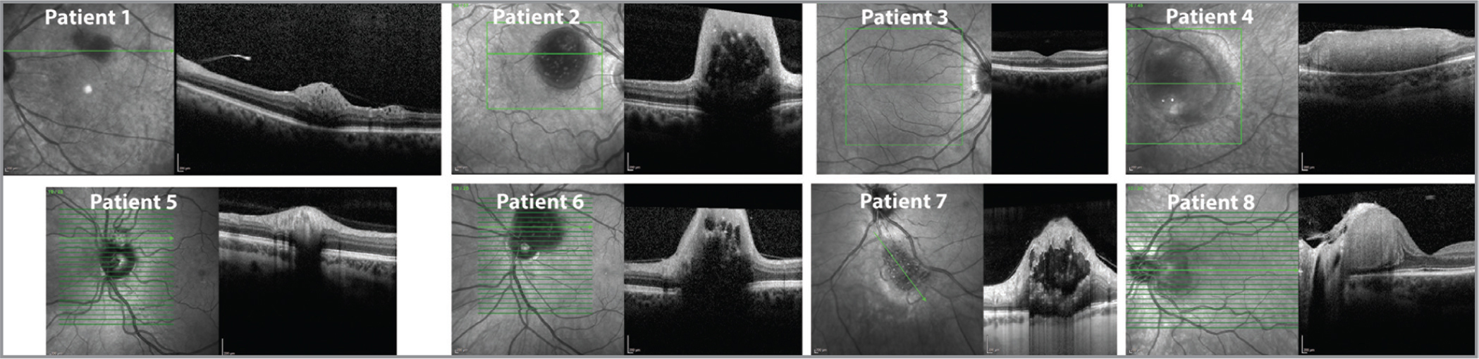 Ocular coherence tomography of all patients upon presentation. Images are numbered corresponding to the patient labels consistent in other Tables and Figures.