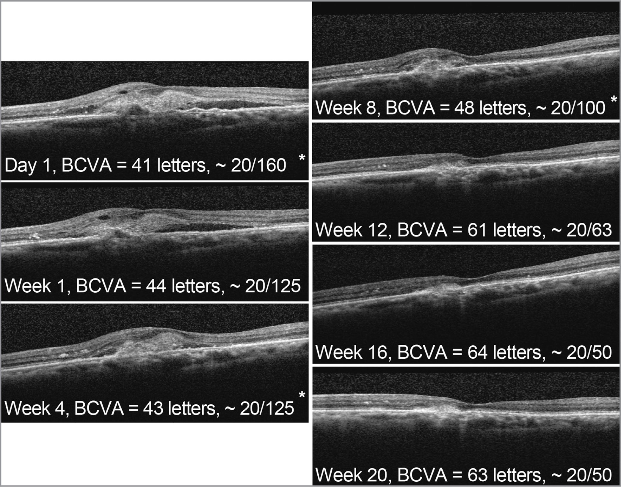 Spectral-domain optical coherence tomography images and best-corrected visual acuity (BCVA) in a 77-year-old Japanese male with neovascular age-related macular degeneration and polypoidal choroidal vasculopathy in the left eye treated with abicipar 2 mg in the BAMBOO study. Asterisk indicates visit with abicipar intravitreal injection (baseline, week 4, and week 8).