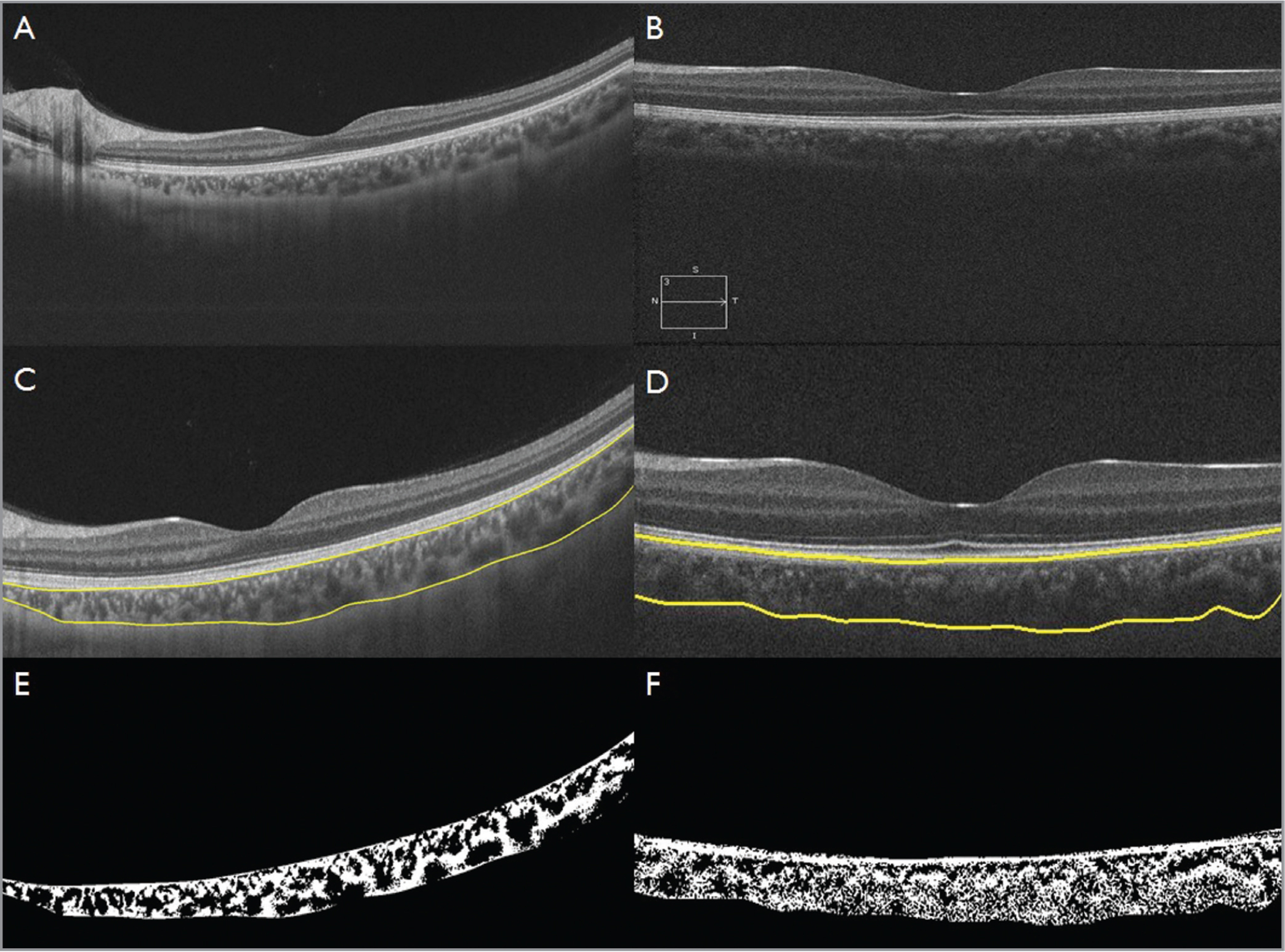 Optical coherence tomography (OCT) of the left eye of a 27-year-old male using swept-source OCT (A) and spectral-domain OCT (B), respectively. (C, D) Choroid segmentation using automated algorithm. (E, F) Binarized images, which were used to calculate the choroidal vascularity index (0.512 and 0.479, respectively)