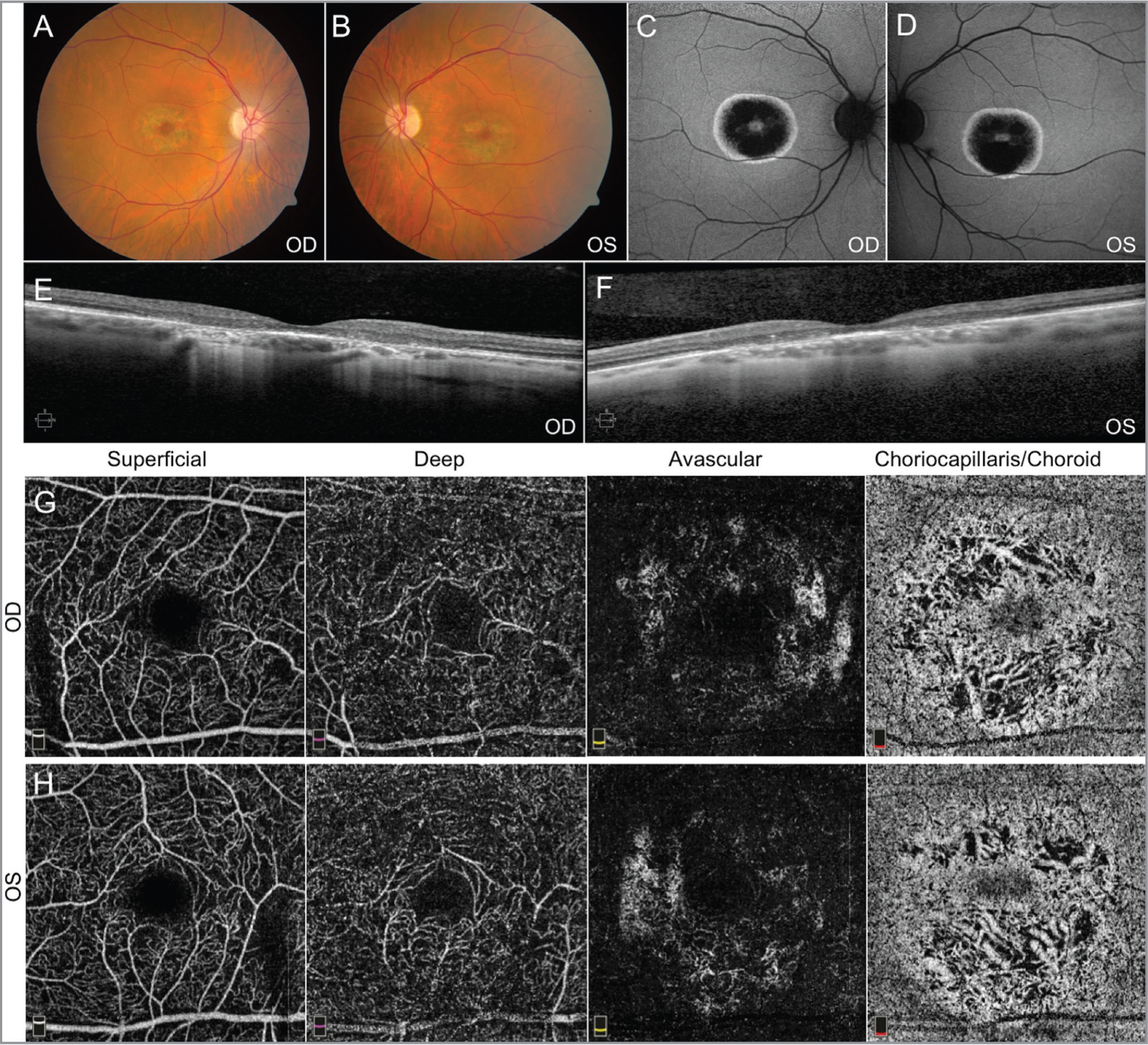 Fundus imaging from Patient 2. Fundus photos (A, B) and autofluorescence (C, D) demonstrate pigmentary changes with bull's-eye maculopathy. Spectral-domain optical coherence tomography (OCT) of the macula (E, F) is consistent with outer retinal degeneration. OCT angiography imaging (G, H) showed moderate attenuation of vasculature in the choriocapillaris/choroid layer. These findings appear more pronounced than those found in Patient 1.