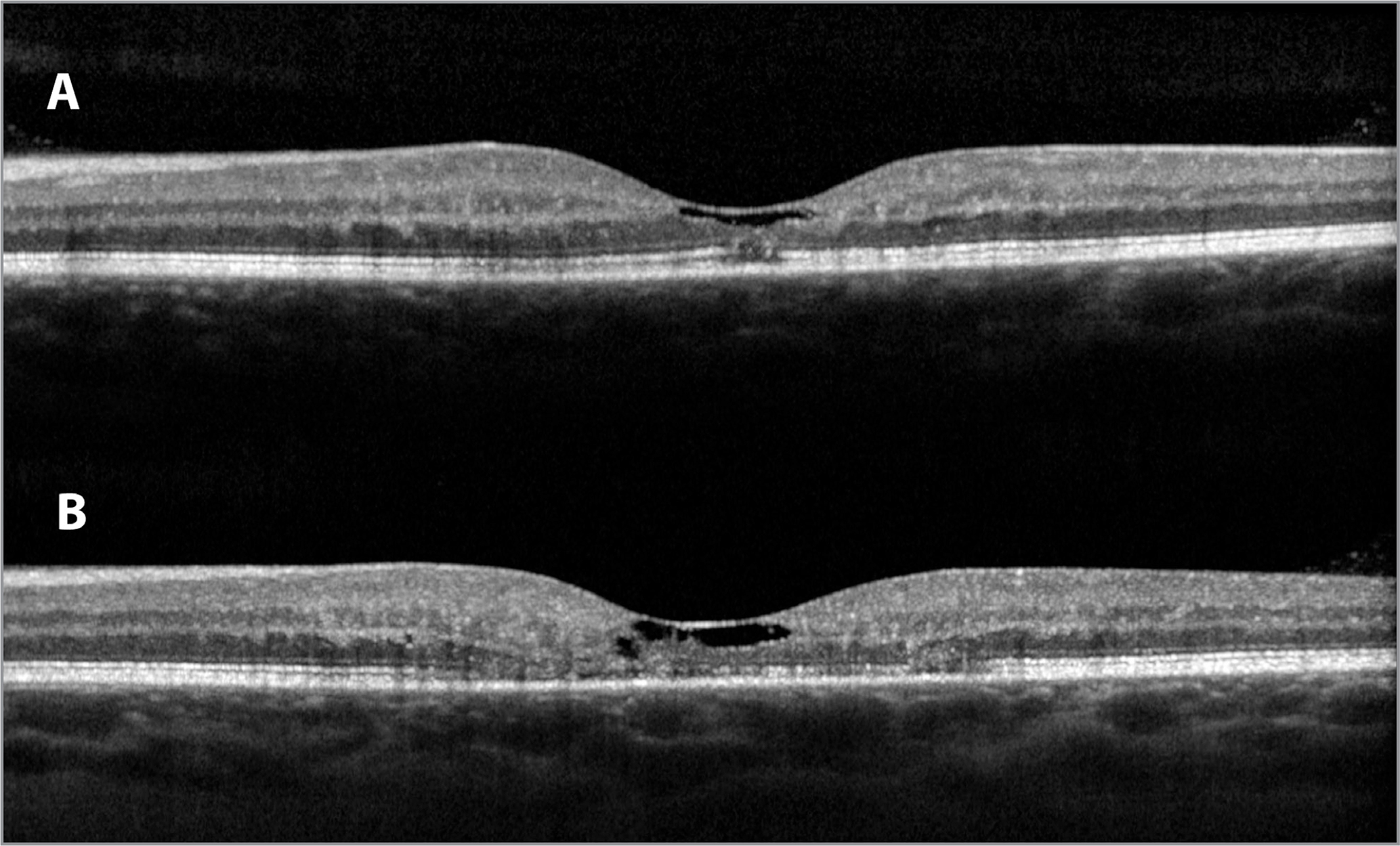 Optical coherence tomography line scans of the eye shown in Figure 2 showing progression over time. (A) A small region of only focal attenuation (relative hyporeflectivity) of the ellipsoid zone band is visible subfoveally at the time of imaging shown in Figure 2. Hyporeflective cavitation, which can be present early or late in disease, is present in the inner retina at the fovea, with still-intact internal limiting membrane. (B) Four years later, the area of ellipsoid zone disruption is much more extensive. Inner retinal cavitation is more prominent. Worsening in this case is rapid compared with most eyes with the disease.