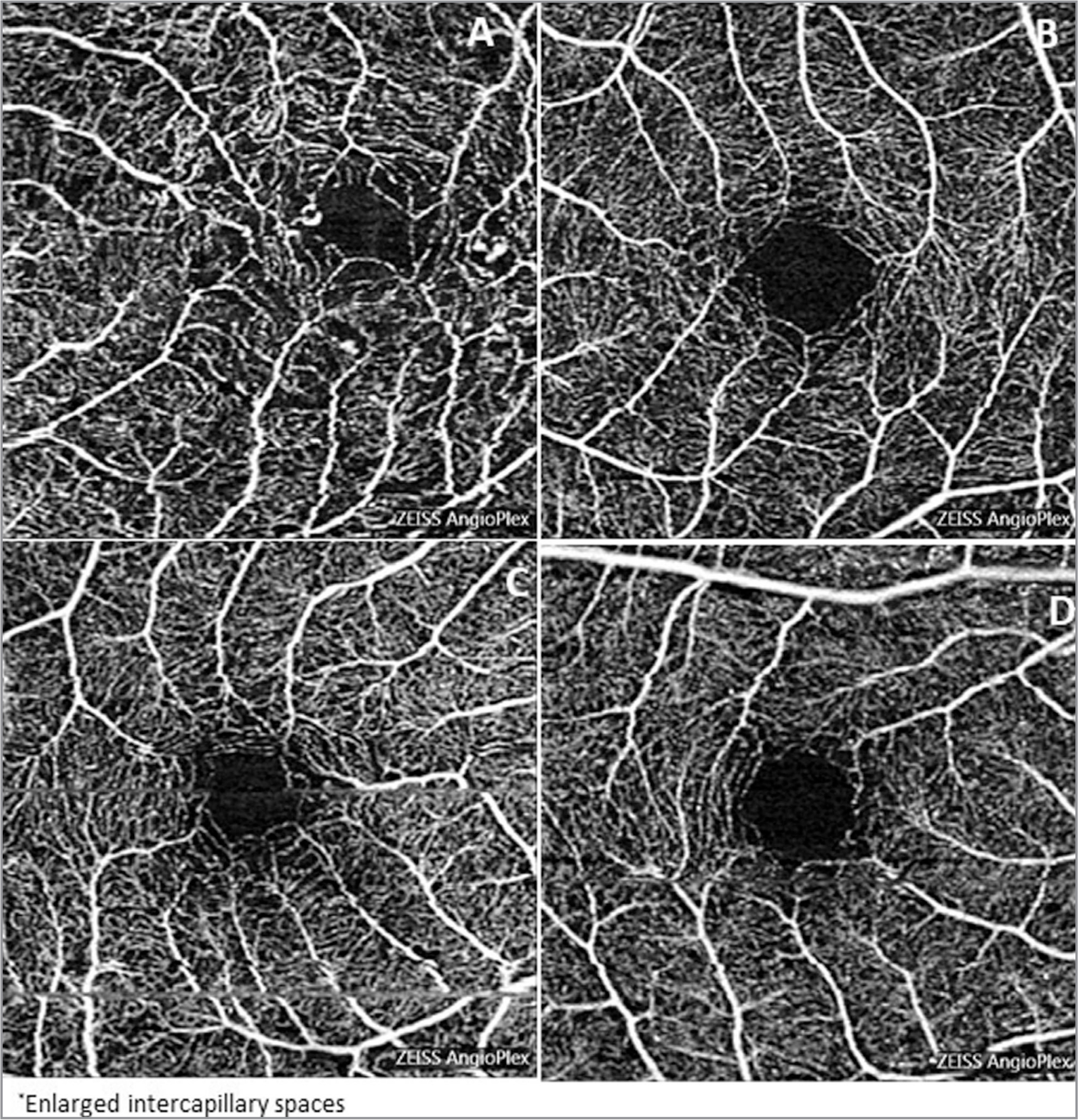 Qualitative changes affecting the superficial capillary plexus in radiation-exposed eyes were evident, including microaneurysms (A), punched-out borders (B), enlarged intercapillary spaces (EICA) (C), and capillary loops (D).