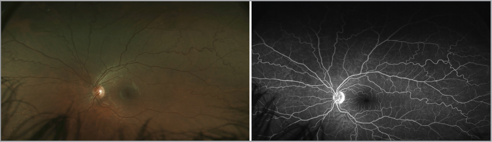Fundus image (left) and widefield fluorescein angiography (right) of the fellow unaffected eye in a patient with Coats' disease demonstrating retinal vascular tortuosity. The patient has no systemic cardiovascular disease after a thorough workup.