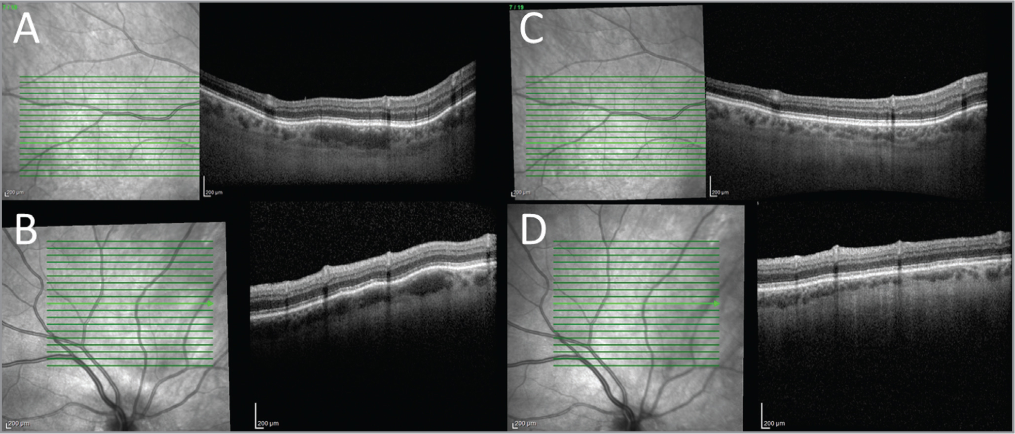 Spectral-domain optical coherence tomography of the hypopigmented lesions in the superotemporal macula (A) and superior to the disc (B) shows deep, hyporeflective choroidal lesions obliterating the normal vascular pattern that resolved 6 weeks after posterior sub-Tenon's triamcinolone acetonide (C, D).