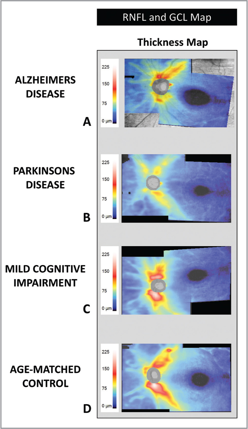 Combined color-coded retinal nerve fiber layer and ganglion cell layer thickness maps (with scale on left) in Alzheimer's disease (AD) (A), Parkinson's disease (PD) (B), mild cognitive impairment (MCI) (C), and an age-matched control (D) showing retinal nerve fiber layer and ganglion cell layer thinning to varying extents in AD, PD, and MCI compared to an age-matched control subject.