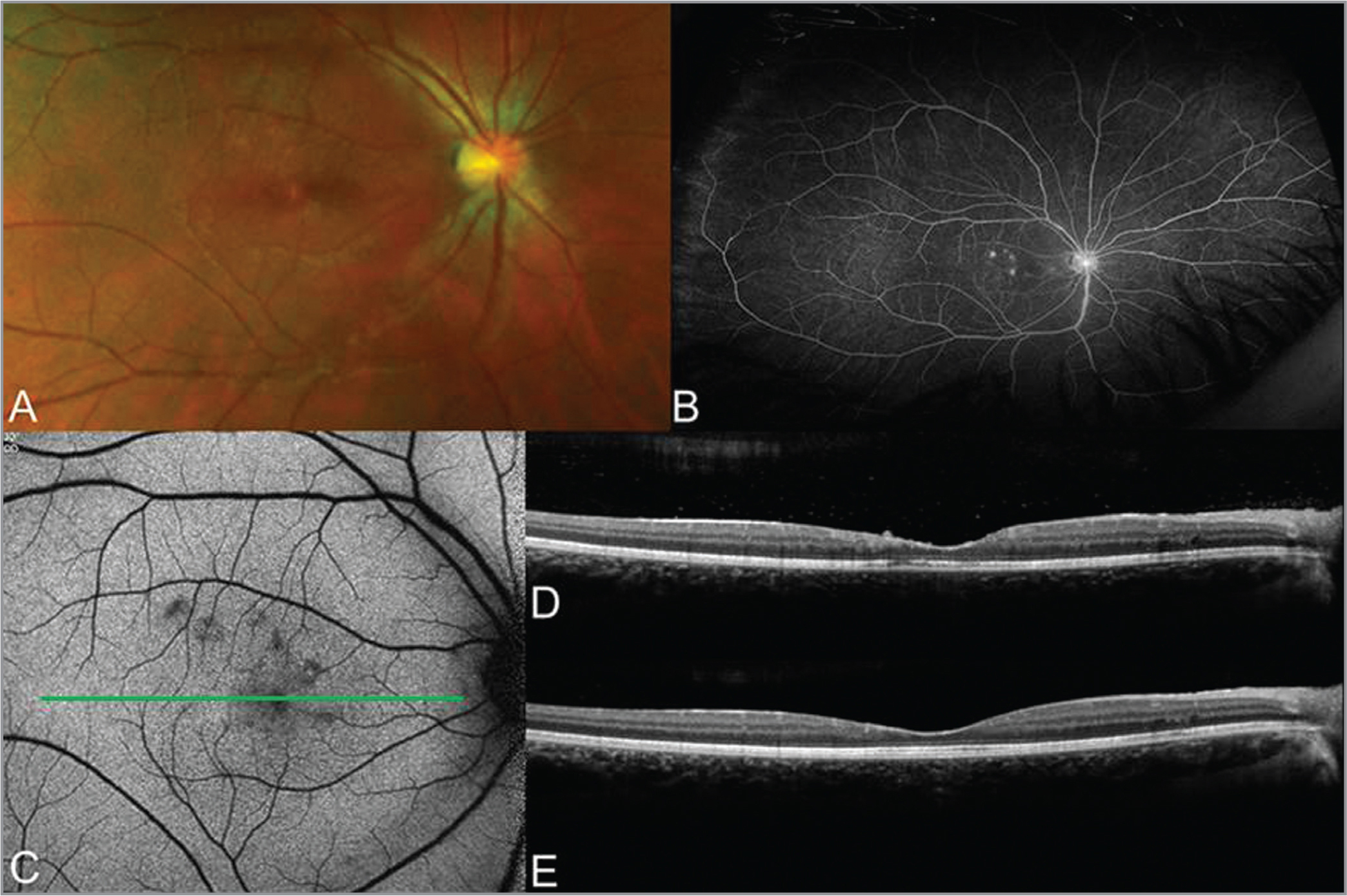 Multimodal imaging of the right eye in a 21-year-old woman with punctate outer retinal toxoplasmosis. (A) Color fundus photograph shows white, punctate, perifoveal retinal lesions. (B) Ultra-widefield fluorescein angiogram shows hyperfluorescence of the retinal lesions and optic nerve staining. (C) Fundus autofluorescence demonstrates punctate areas of hypoautofluorescence. The green line has been added to show the position of the B-scans in (D) and (E). (D) Optical coherence tomography shows findings of focal disruption of the ellipsoid and interdigitation zones. Within the hyporeflective pre-macular bursa, there are hyperreflective superficial retinal deposits that have largely resolved and become inactive (E) following treatment.