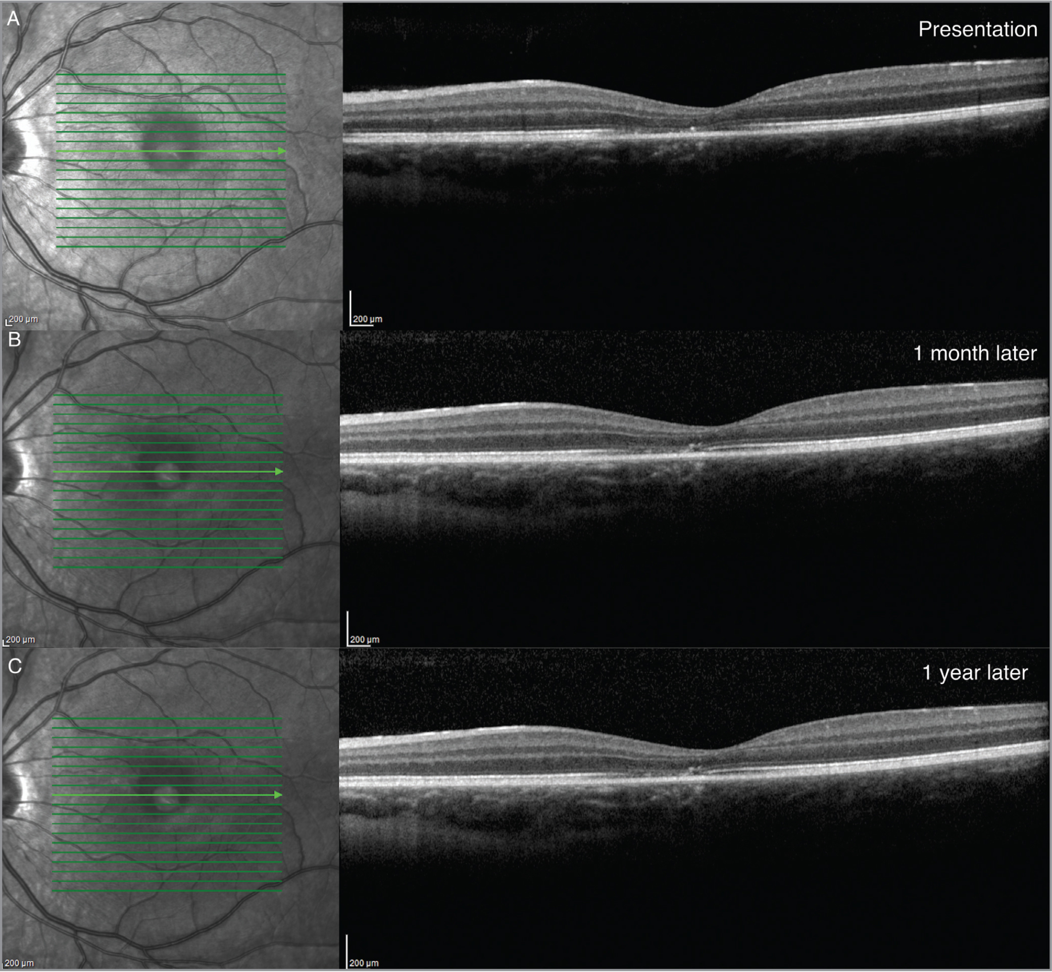 Case 2: Spectral-domain optical coherence tomography at (A) presentation showing loss of reflection in cone outer segment tips and inner segment/outer segment junction (B) 1 month after injury and (C) 1 year later showing partial photoreceptor recovery with minimal persistent outer retinal defects.