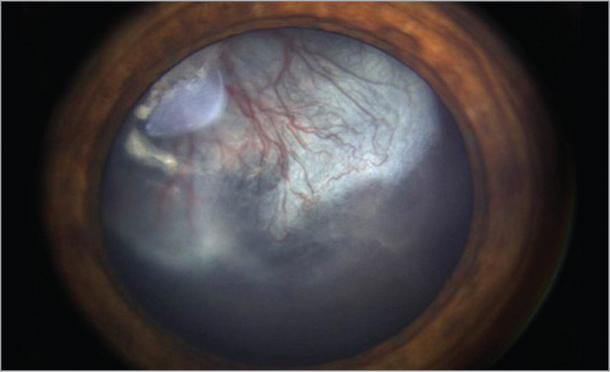Retcam photograph of the anterior segment in the right eye demonstrated superotemporal opacity on the anterior lens capsule, clear crystalline lens, and a retrolenticular fibrovascular membrane with cysts extending from the temporal aspect of the lens and occluding the visual axis.