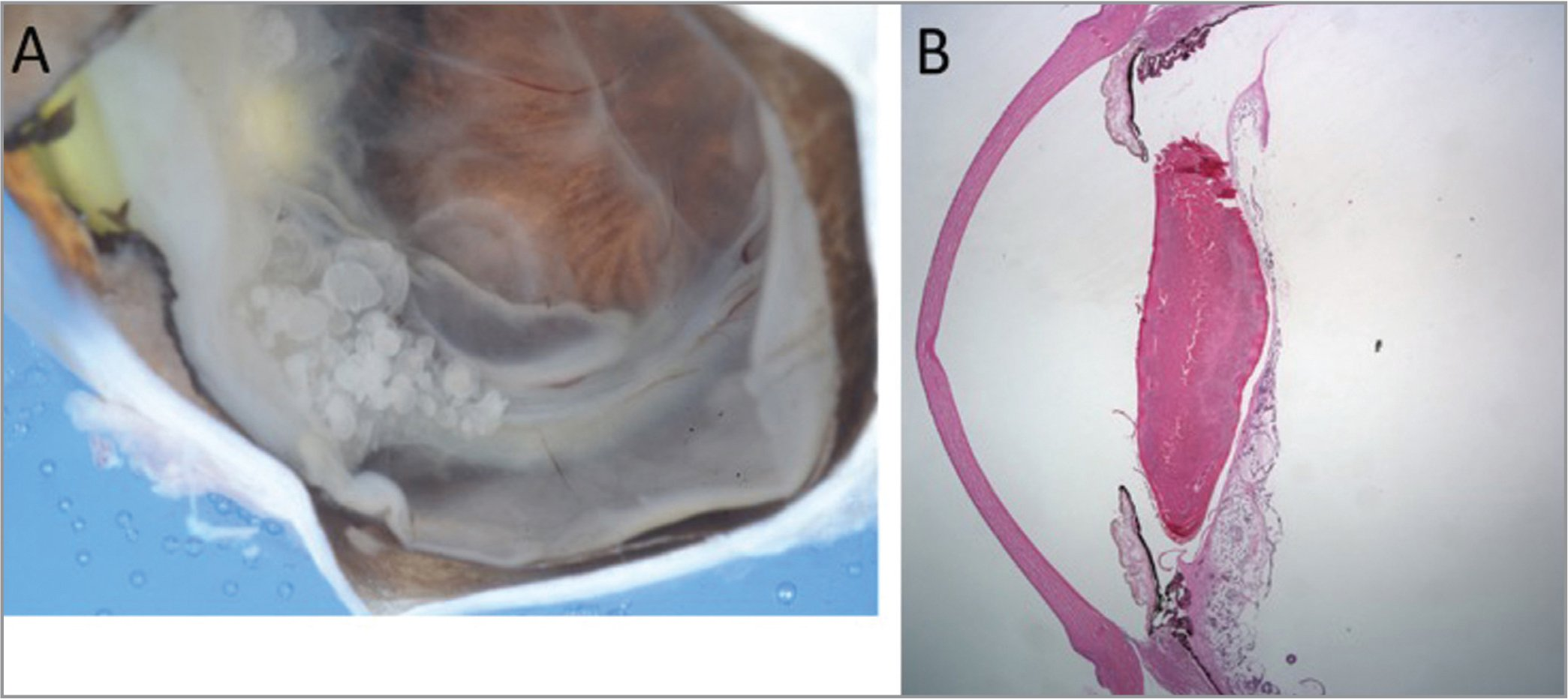 Gross imaging (A) and hematoxylin and eosin (B) of an enucleated specimen demonstrating cystic tumor emanating from the ciliary body with retrolental invasion.